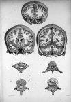 Fig. 1. Coupe verticale du cerveau et du crâne au niveau de la suture fronto-pariétal / Fig. 2. Coup [...]