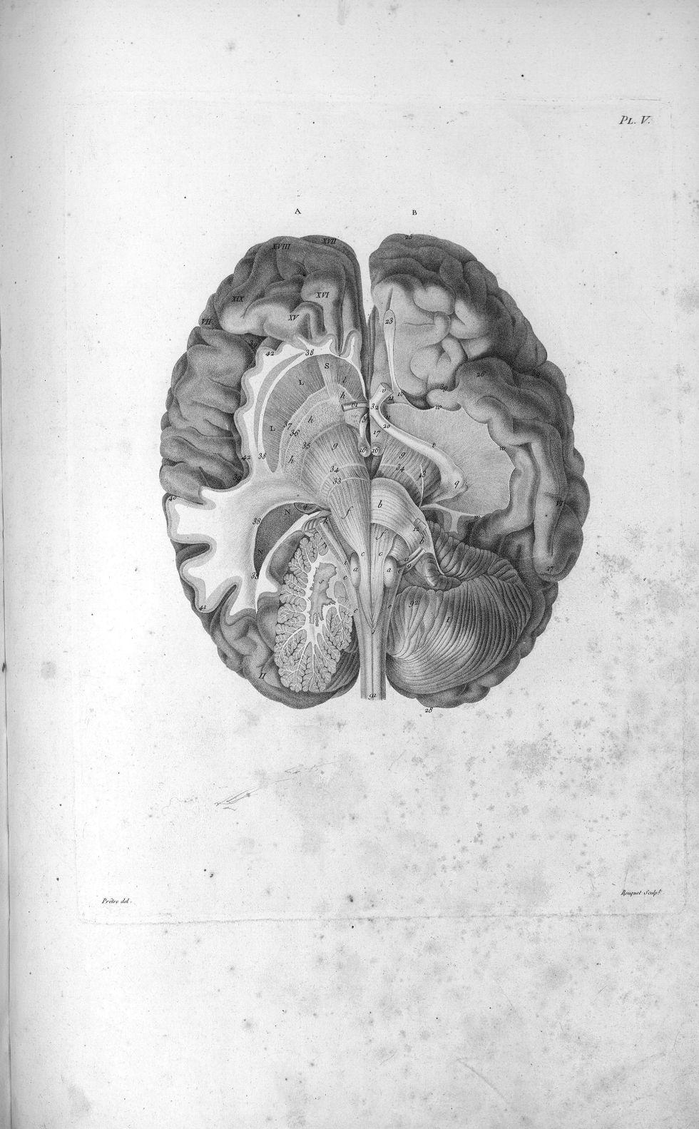 Pl. V. Représentation du cervelet et d'une partie de la base du cerveau - Anatomie et physiologie du [...] - Anatomie. Neurologie. Cerveaux (têtes). 19e siècle (France) - med00575x01x0313