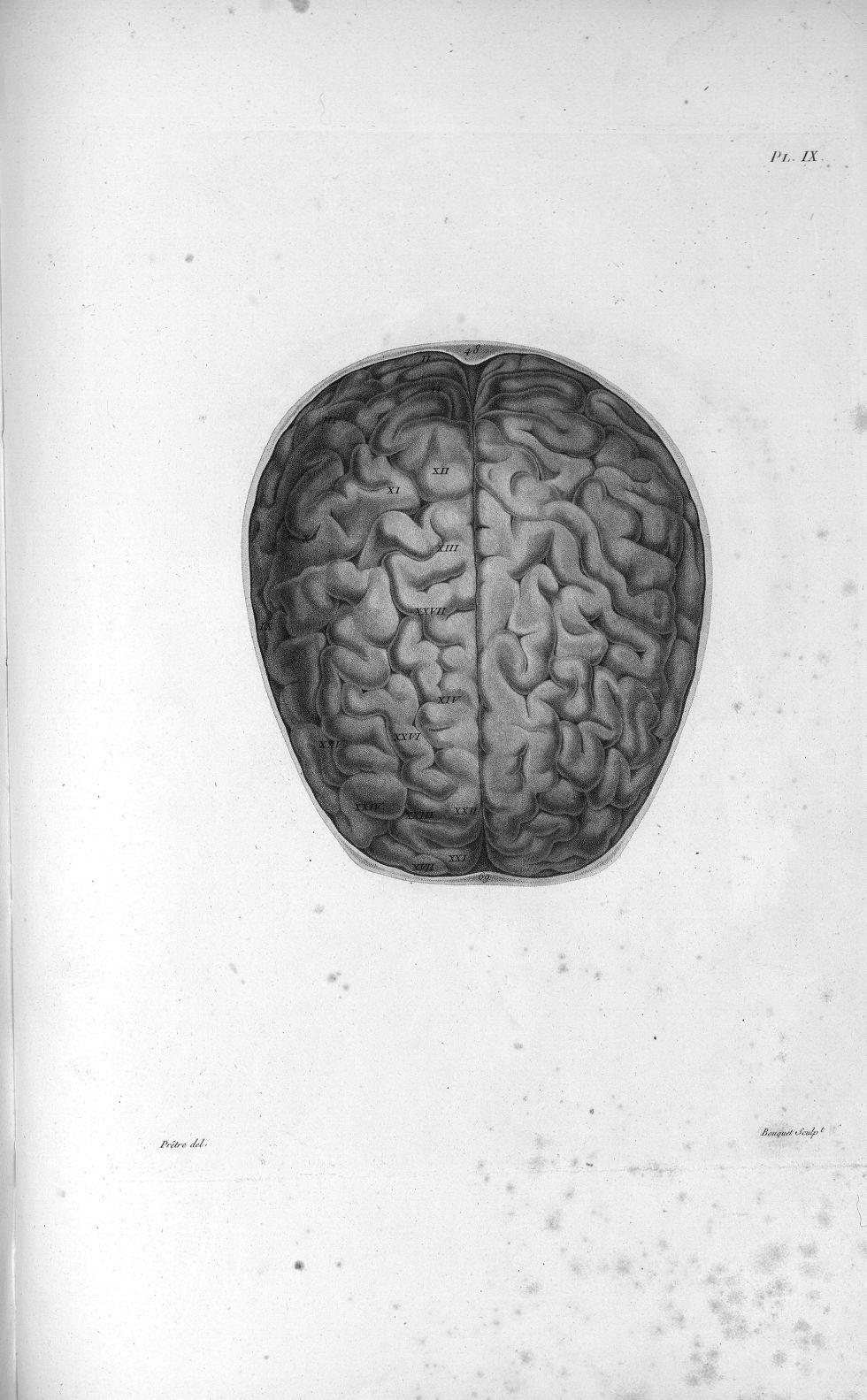 Pl. IX. Crâne scié horizontalement au-dessus des sourcils (cerveau d'homme) - Anatomie et physiologi [...] - Anatomie. Neurologie. Cerveaux, crânes (têtes). 19e siècle (France) - med00575x01x0321