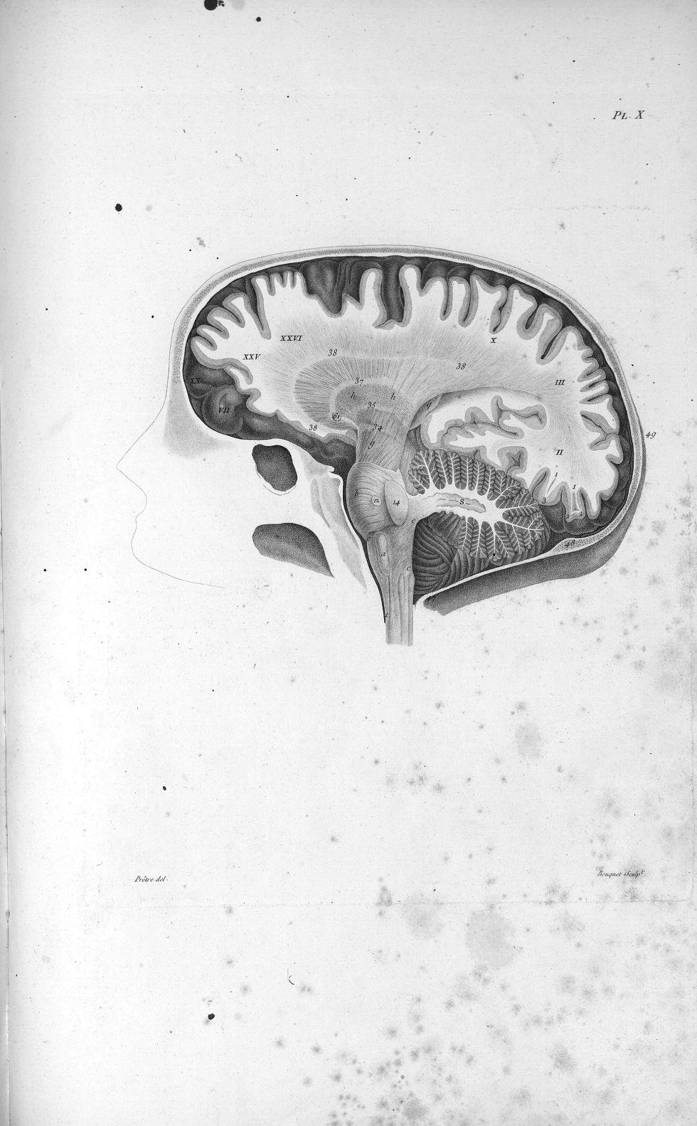 Pl. X. Crâne scié du côté gauche (cerveau de femme) - Anatomie. Neurologie. Cerveaux, crânes (têtes). 19e siècle (France) - med00575x01x0323