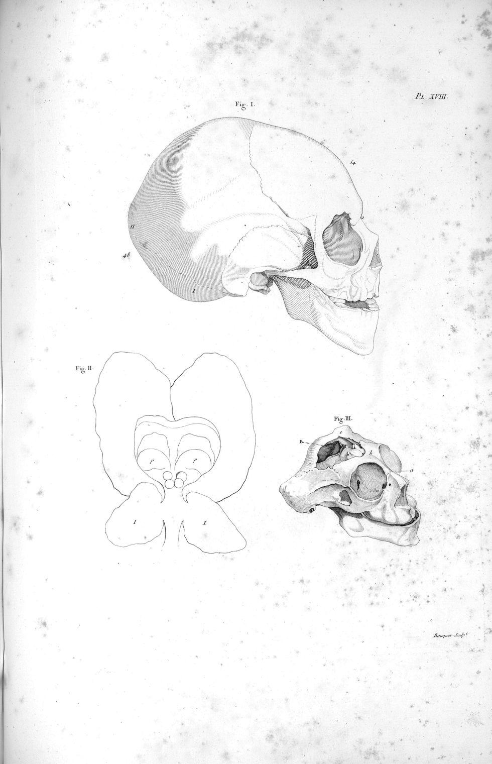 Pl. XVIII. Fig. II. Contour du cerveau d'un jeune homme complètement imbécile [...] ; crâne d'un enf [...] - Anatomie. Neurologie. Cerveaux. Crânes. Phrénologie. 19e siècle (France) - med00575x02x0331