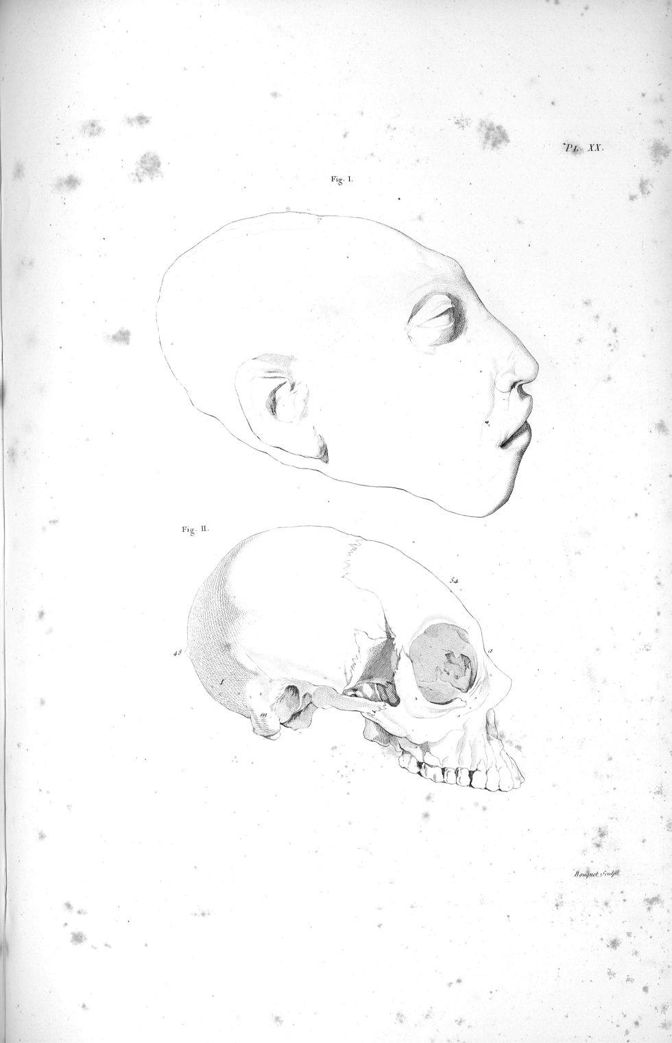 Pl. XX. Fig. 1 et 2. Tête et crâne d'une fille de vingt ans complètement imbécile - Anatomie. Neurologie. Crânes. Phrénologie. 19e siècle (France) - med00575x02x0335