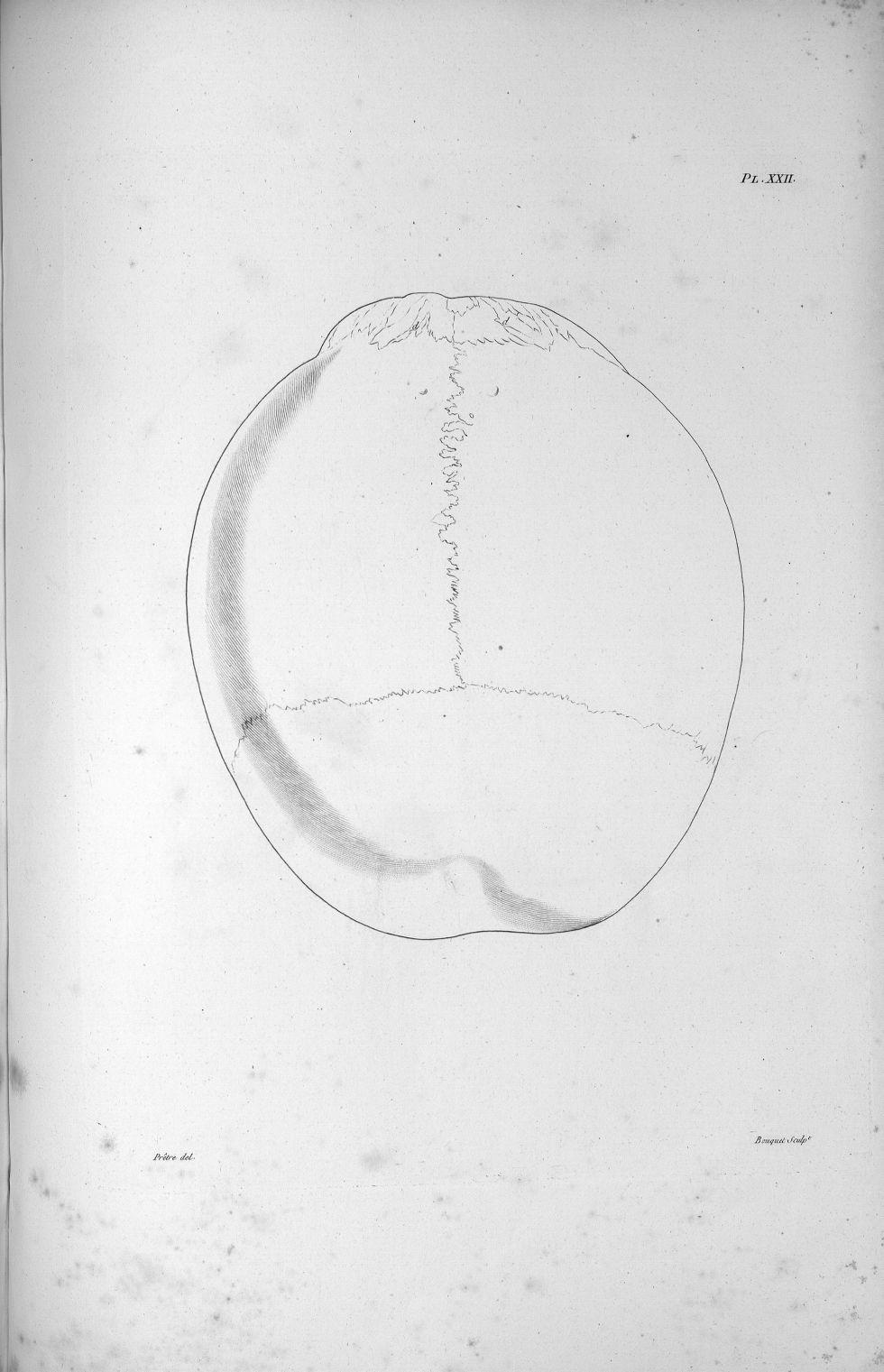 Pl. XXII. Crâne d'un crétin hydrocéphale vu d'en haut - Anatomie et physiologie du système nerveux e [...] - Anatomie. Neurologie. Crânes. Phrénologie. 19e siècle (France) - med00575x02x0339