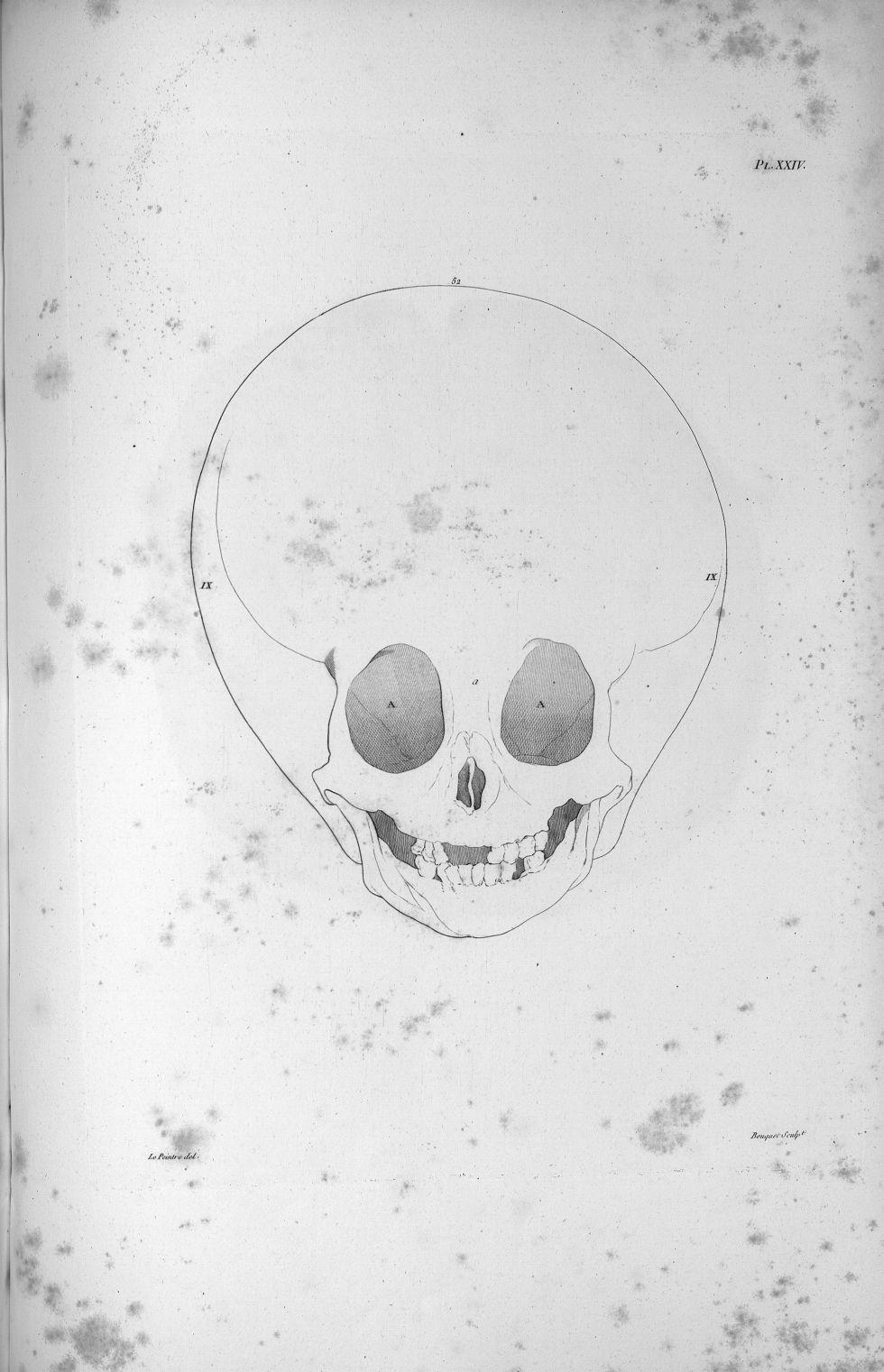 Pl. XXIV. Même hydrocéphale [enfant de sept ans complètement imbécile], vu en face - Anatomie et phy [...] - Anatomie. Neurologie. Crânes. Phrénologie. 19e siècle (France) - med00575x02x0343