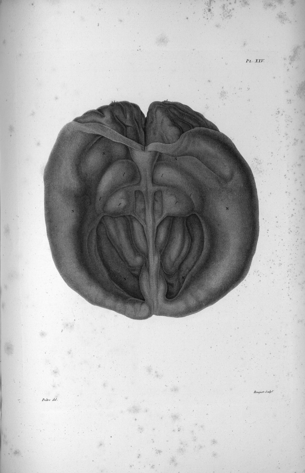 Pl. XXV. Cerveau d'une femme hydrocéphale de cinquante-cinq ans, contenant quatre litres d'eau, et j [...] - Anatomie. Neurologie. Crânes. Phrénologie. 19e siècle (France) - med00575x02x0345