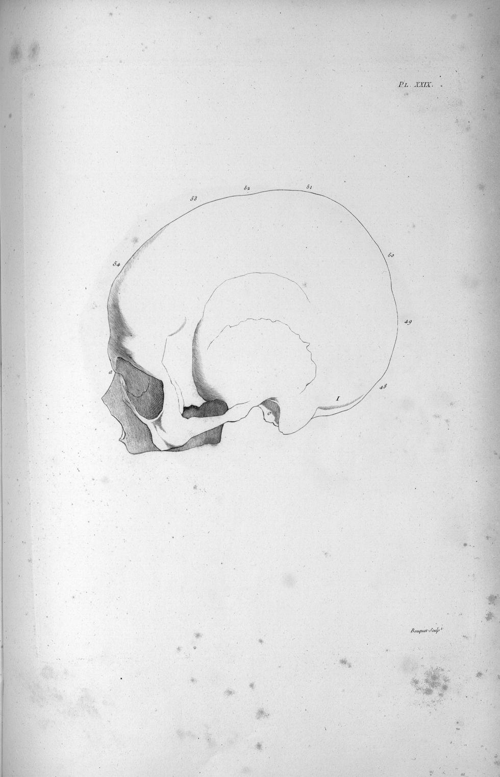 Pl. XXIX. Crâne d'une vieille femme incomplètement imbécile de naissance - Anatomie et physiologie d [...] - Anatomie. Neurologie. Crânes. Phrénologie. 19e siècle (France) - med00575x02x0353