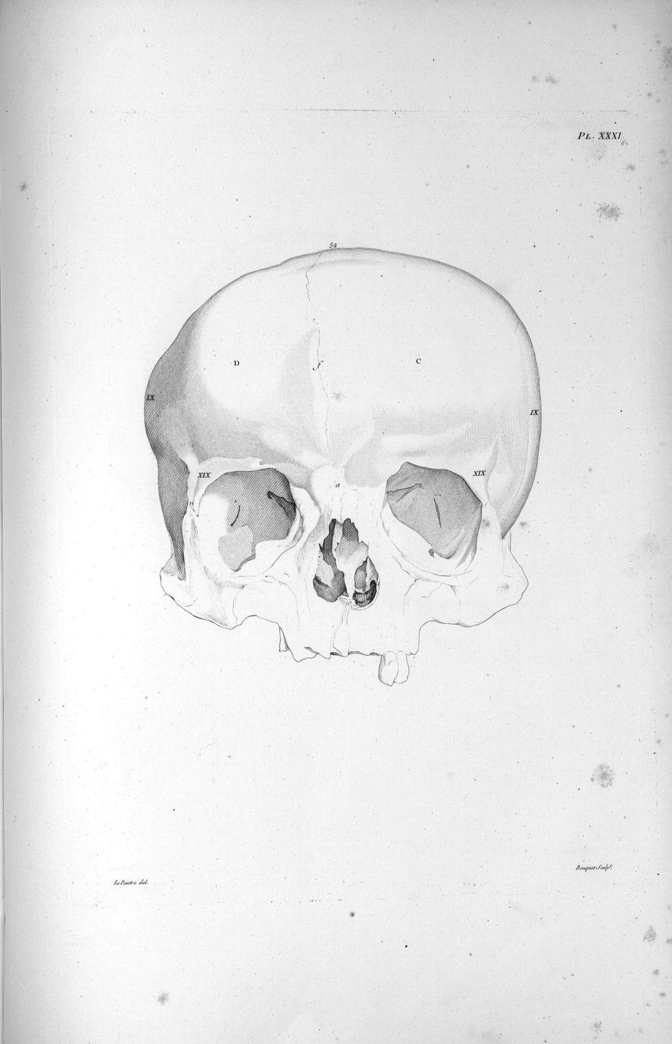 Pl. XXXI. Crâne, dont le diamètre d'un temporal à l'autre est plus considérable que du frontal à l'o [...] - Anatomie. Neurologie. Crânes. Phrénologie. 19e siècle (France) - med00575x02x0357