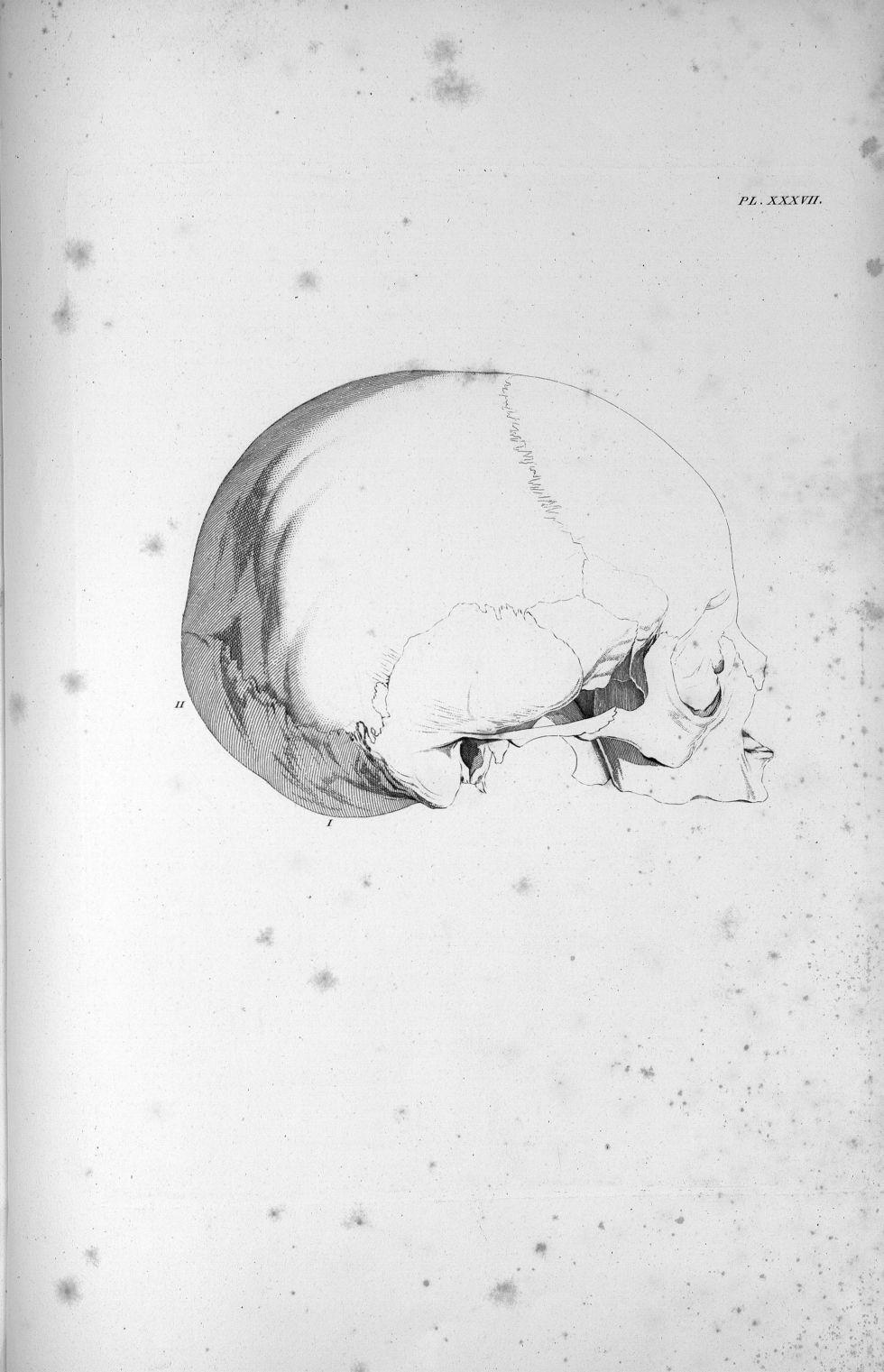 Pl. XXXVII. Crâne d'un garçon de dix à douze ans - Anatomie et physiologie du système nerveux en gén [...] - Anatomie. Neurologie. Crânes. 19e siècle (France) - med00575x02x0369