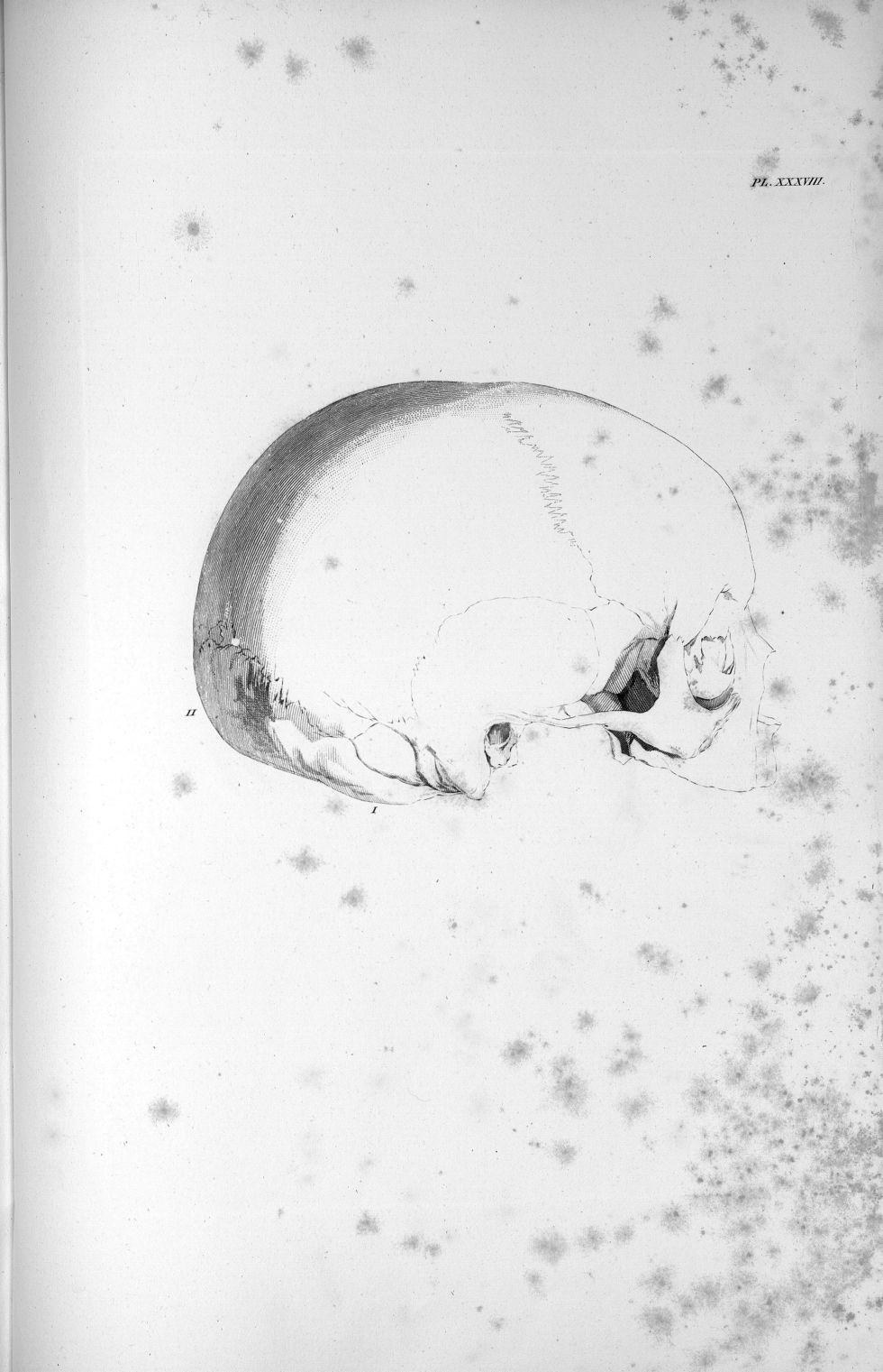 Pl. XXXVIII. Crâne d'une fillette de six ans - Anatomie et physiologie du système nerveux en général [...] - Anatomie. Neurologie. Crânes. 19e siècle (France) - med00575x02x0371