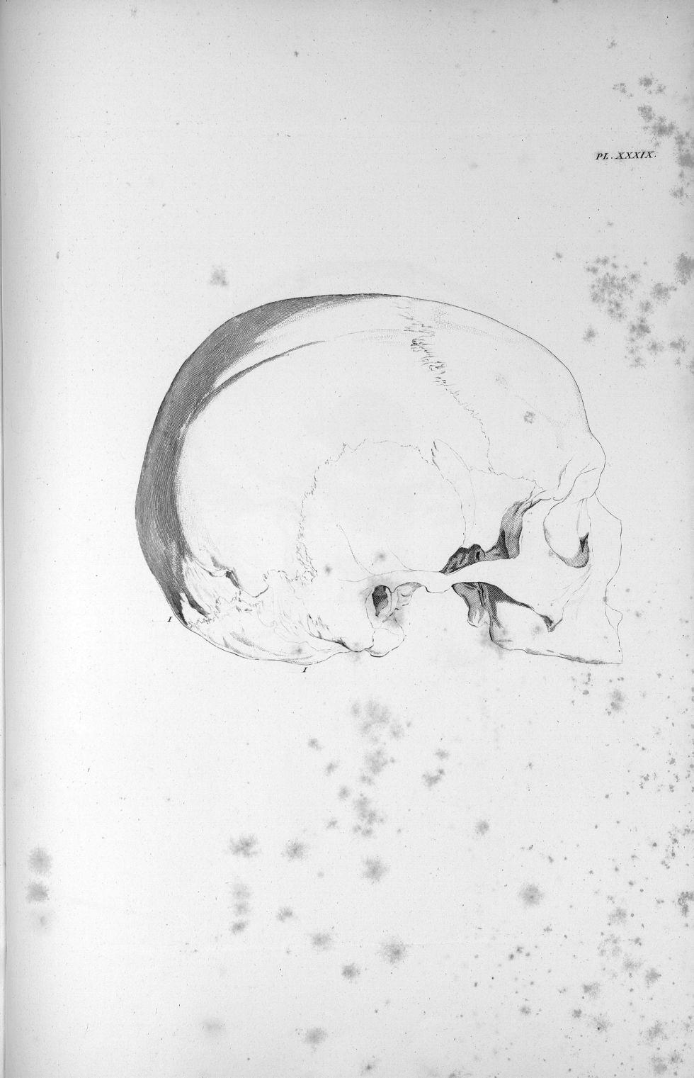 Pl. XXXIX. Crâne d'un homme adulte avec un développement extraordinaire du cervelet - Anatomie et ph [...] - Anatomie. Neurologie. Crânes. 19e siècle (France) - med00575x02x0373