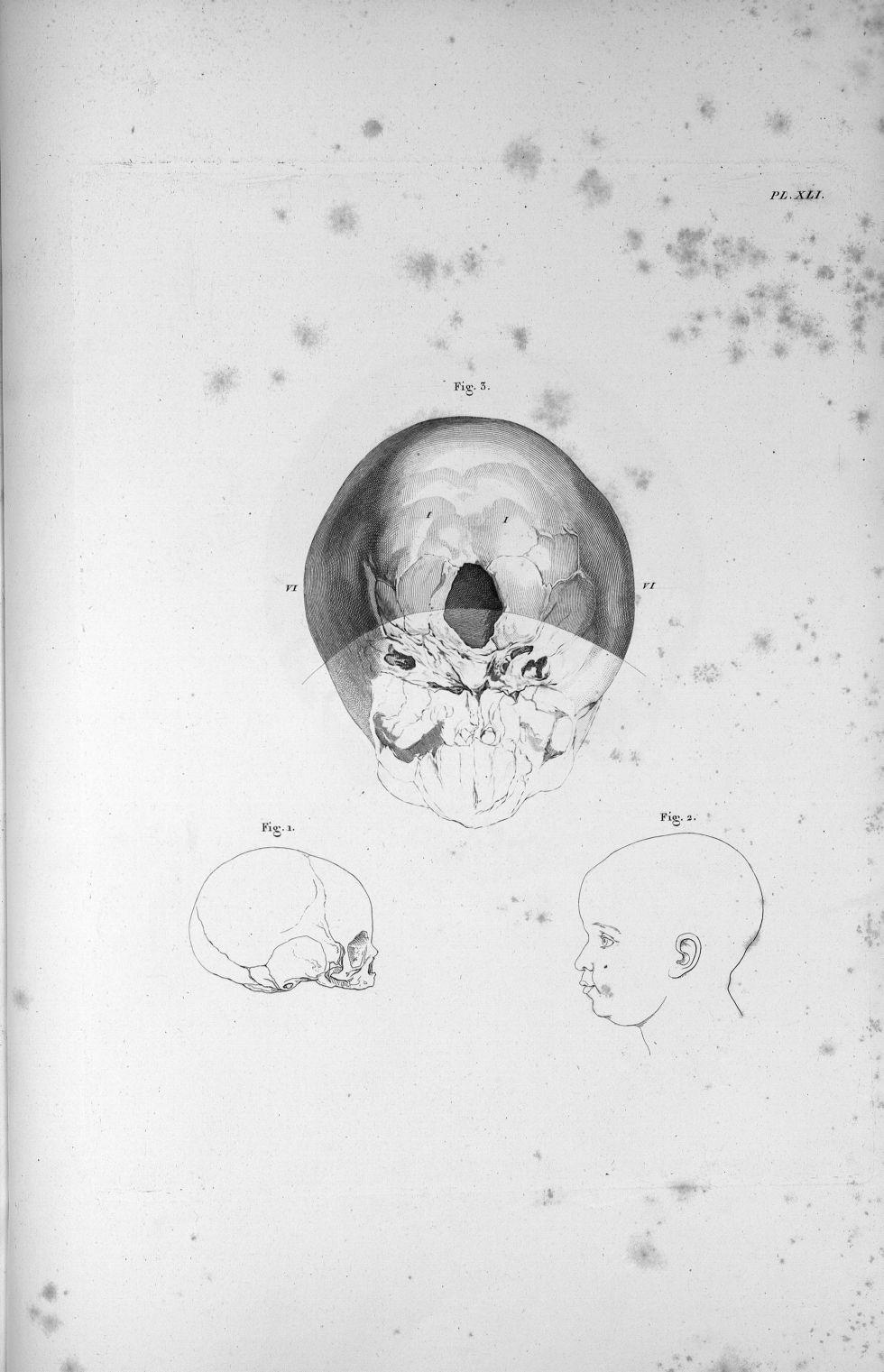 Pl. XLI. Fig. 3. La base du crâne d'un enfant nouveau-né, foible développement du cervelet en compar [...] - Anatomie. Neurologie. Crânes. 19e siècle (France) - med00575x02x0377
