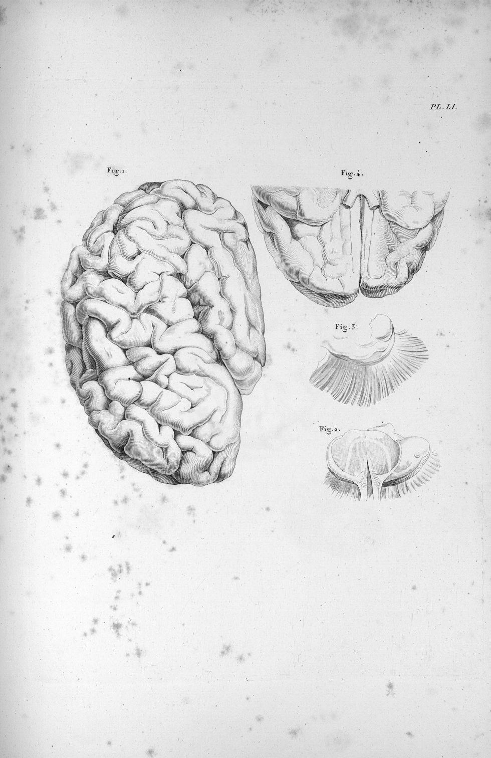 Pl. LI. Cerveau d'une jeune femme aliénée, dont la couche optique de l'hémisphère gauche a été en pa [...] - Anatomie. Neurologie. Cerveaux. Phrénologie. 19e siècle (France) - med00575x03x0299