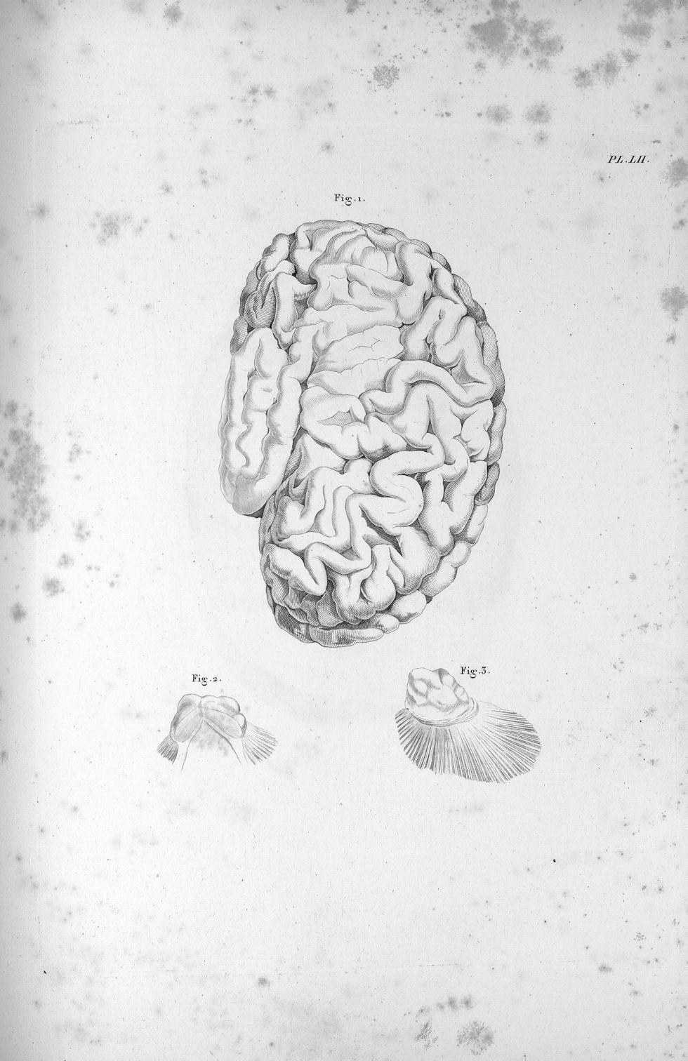 Pl. LII. Même cerveau, Pl. LI [Cerveau d'une jeune femme aliénée, dont la couche optique de l'hémisp [...] - Anatomie. Neurologie. Cerveaux. Phrénologie. 19e siècle (France) - med00575x03x0301