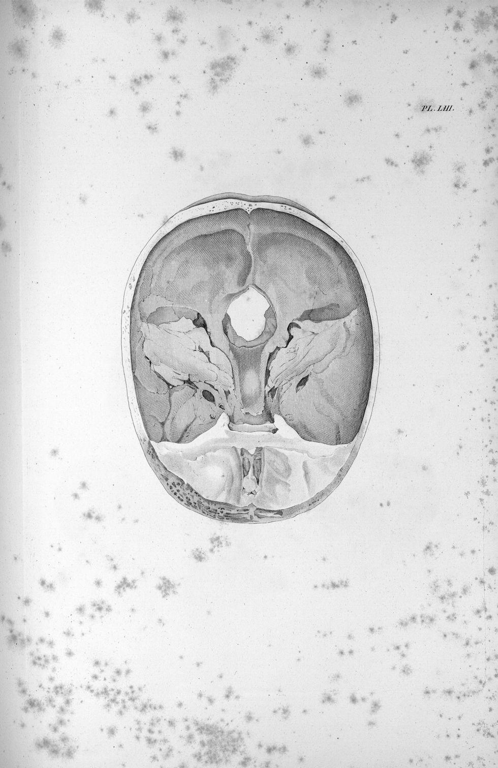 Pl. LIII. Crâne qui contenoit le cerveau, pl. LI et pl. LII [Cerveau d'une jeune femme aliénée, dont [...] - Anatomie. Neurologie. Crânes. Phrénologie. 19e siècle (France) - med00575x03x0303