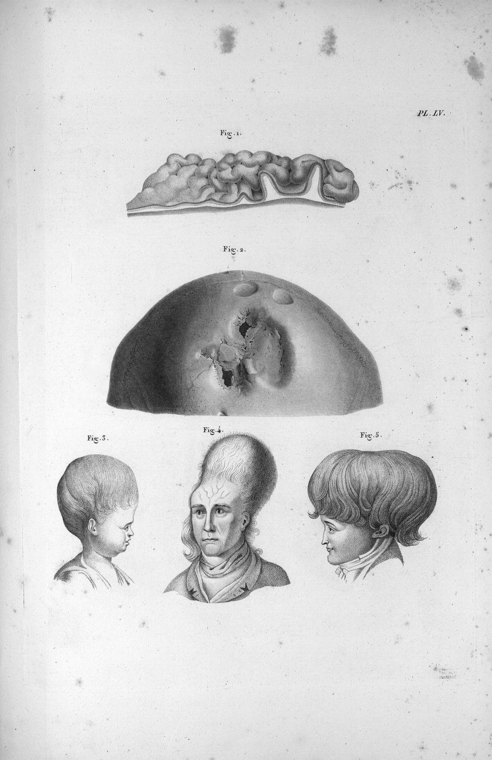 Pl. LIV. Deux crânes extraordinaires, dont fig. I est tout-à-fait déprimé dans sa partie supérieure- [...] - Anatomie. Neurologie. Crânes (malformations). Phrénologie. 19e siècle (France) - med00575x03x0305