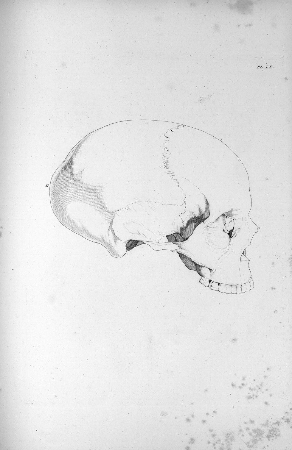 Pl. LX. Crâne d'une femme aliénée par amour de la progéniture - Anatomie et physiologie du système n [...] - Anatomie. Neurologie. Crânes. Phrénologie. 19e siècle (France) - med00575x03x0311