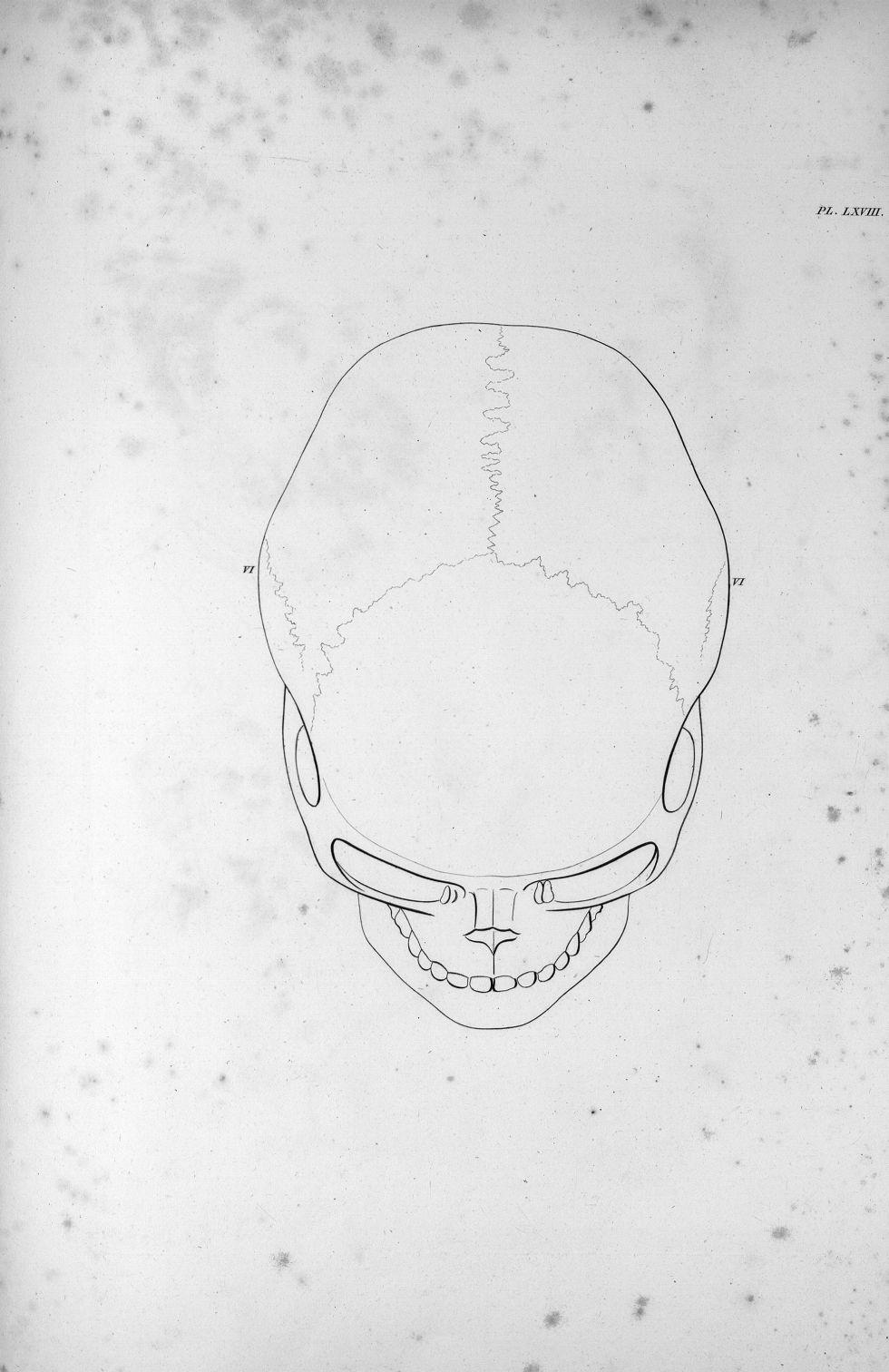 Pl. LXVIII. Crâne de la meurtrière Albert de Moulins - Anatomie et physiologie du système nerveux en [...] - Anatomie. Neurologie. Crânes. Phrénologie. 19e siècle (France) - med00575x03x0323