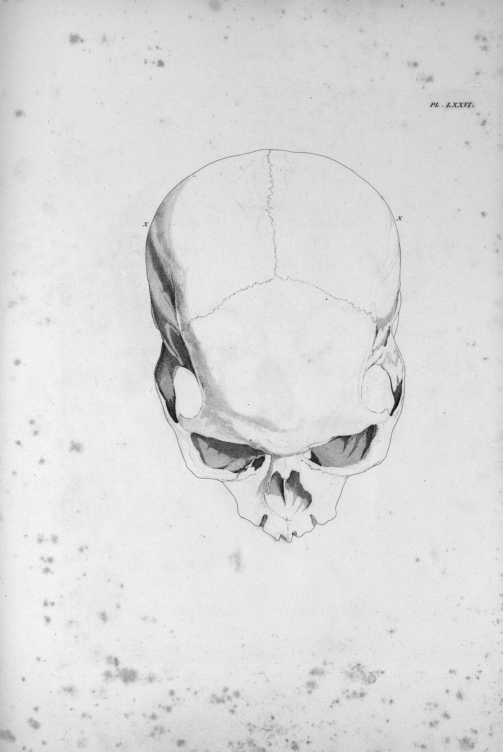 Pl. LXXVI. Modèle d'étourderie - Anatomie et physiologie du système nerveux en général et du cerveau [...] - Anatomie. Neurologie. Crânes. Phrénologie. 19e siècle (France) - med00575x03x0335