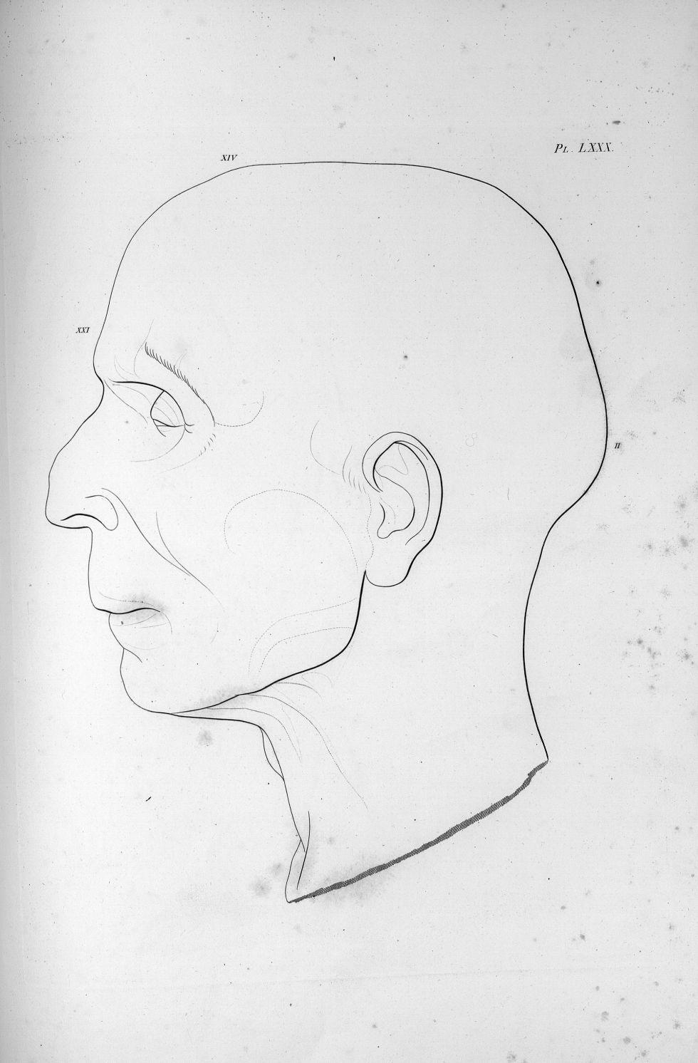 Pl. LXXX. L'abbé Gaultier, organe de l'amour des enfans - Anatomie et physiologie du système nerveux [...] - Anatomie. Neurologie. Crânes (têtes). Phrénologie. 19e siècle (France) - med00575x04x0293