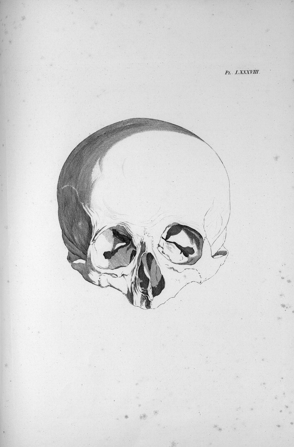 Pl. LXXXVIII. Crâne de Voigtlaender - Anatomie et physiologie du système nerveux en général et du ce [...] - Anatomie. Neurologie. Crânes. Phrénologie. 19e siècle (France) - med00575x04x0309