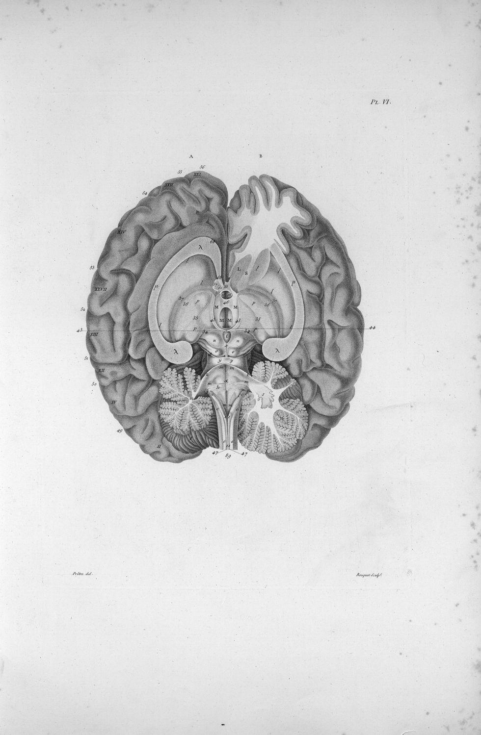 Pl. VI. Cerveau posé sur sa base - Anatomie et physiologie du système nerveux en général et du cerve [...] - Anatomie. Neurologie. Cerveaux (têtes). 19e siècle (France) - med00575xatlasx0016