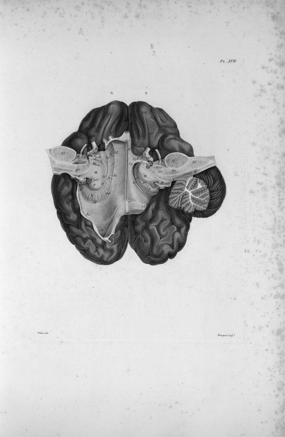 Pl. XVII. Cerveau posé sur sa face supérieure - Anatomie et physiologie du système nerveux en généra [...] - Anatomie. Neurologie. Cerveaux (têtes). 19e siècle (France) - med00575xatlasx0027