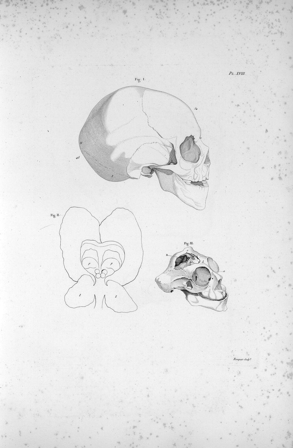 Pl. XVIII. Fig. II. Contour du cerveau d'un jeune homme complètement imbécile [...] ; crâne d'un enf [...] - Anatomie. Neurologie. Cerveaux. Crânes. Phrénologie. 19e siècle (France) - med00575xatlasx0028