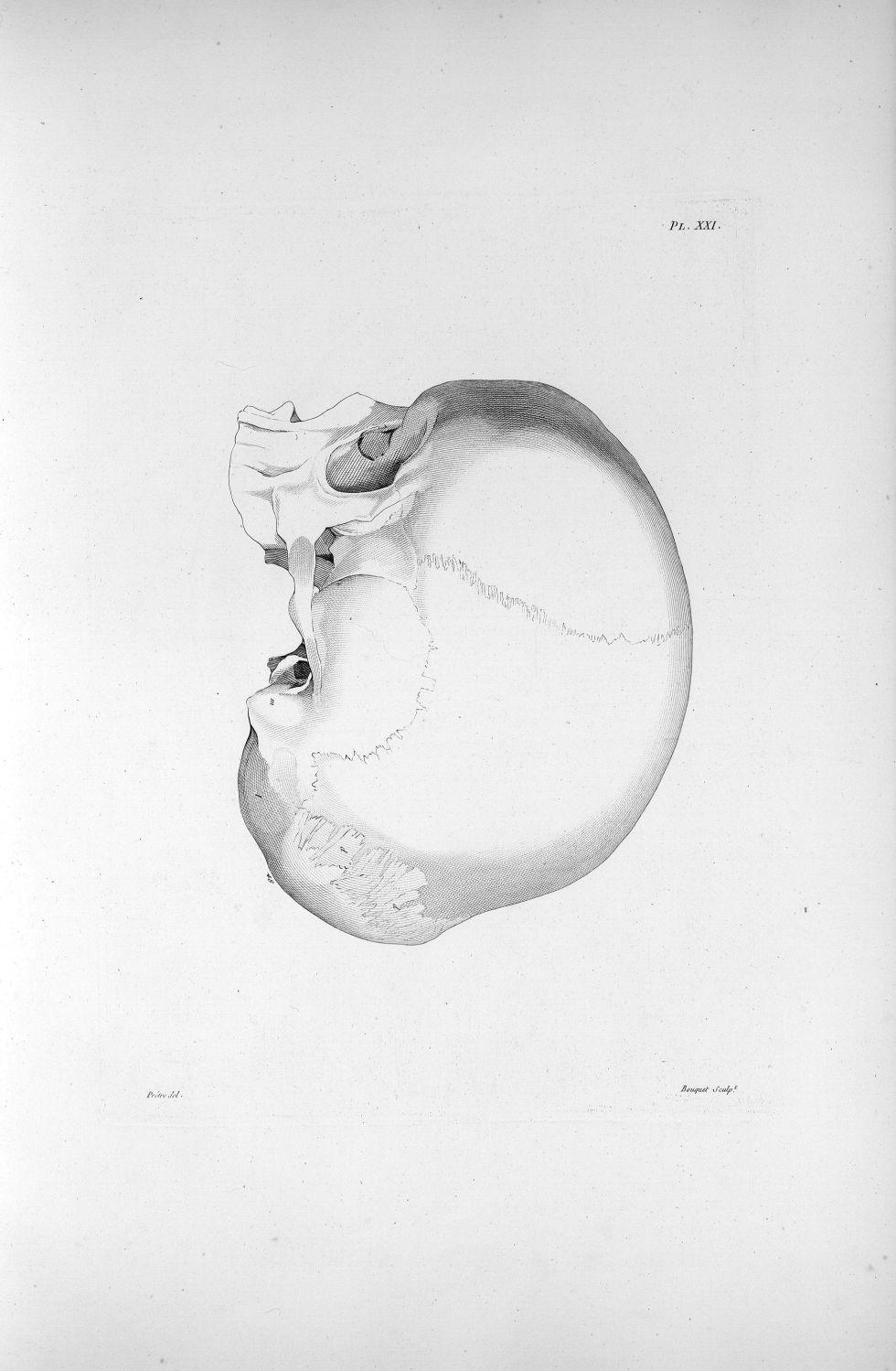 Pl. XXI. Crâne d'un crétin hydrocéphale en profil - Anatomie et physiologie du système nerveux en gé [...] - Anatomie. Neurologie. Crânes. Phrénologie. 19e siècle (France) - med00575xatlasx0031
