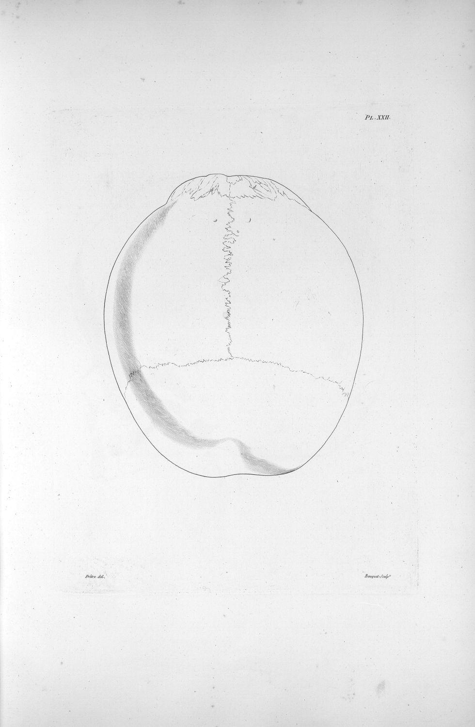 Pl. XXII. Crâne d'un crétin hydrocéphale vu d'en haut - Anatomie et physiologie du système nerveux e [...] - Anatomie. Neurologie. Crânes. Phrénologie. 19e siècle (France) - med00575xatlasx0032