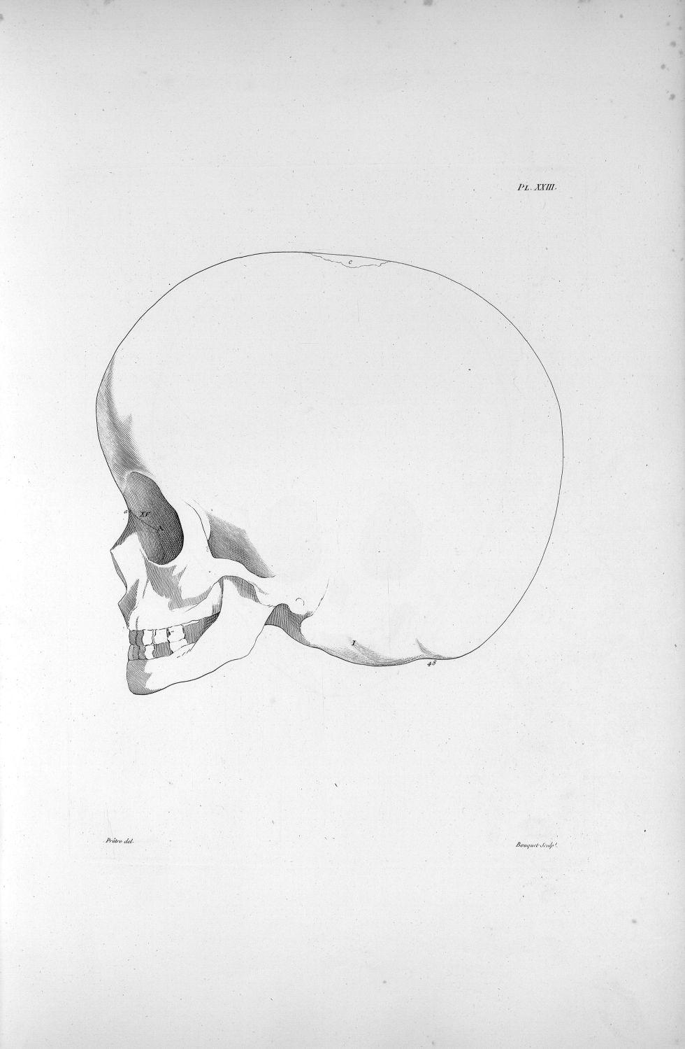 Pl. XXIII. Hydrocéphale d'un enfant de sept ans, en profil, complètement imbécile - Anatomie et phys [...] - Anatomie. Neurologie. Crânes. Phrénologie. 19e siècle (France) - med00575xatlasx0033