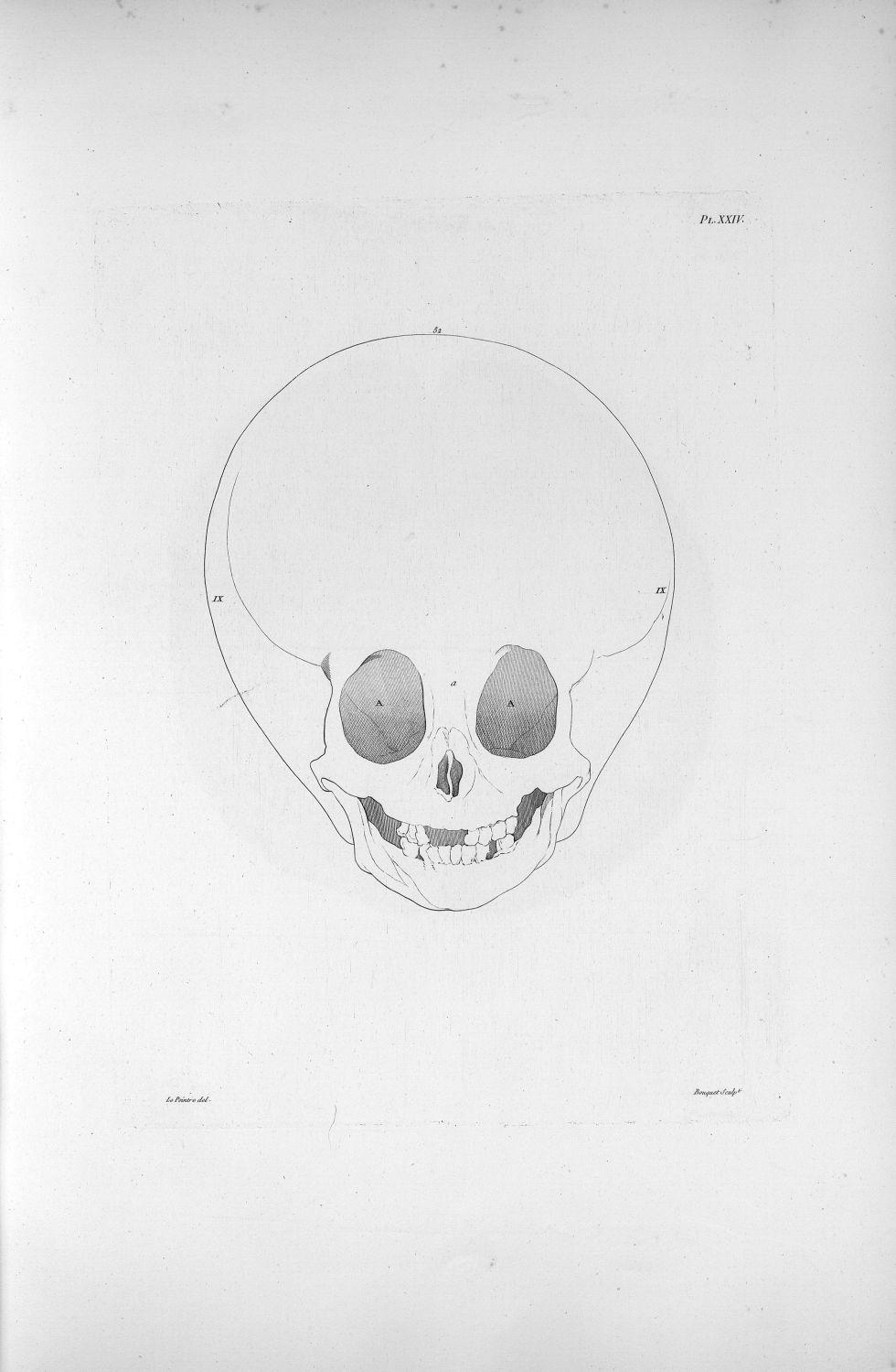 Pl. XXIV. Même hydrocéphale [enfant de sept ans complètement imbécile], vu en face - Anatomie. Neurologie. Crânes. Phrénologie. 19e siècle (France) - med00575xatlasx0034