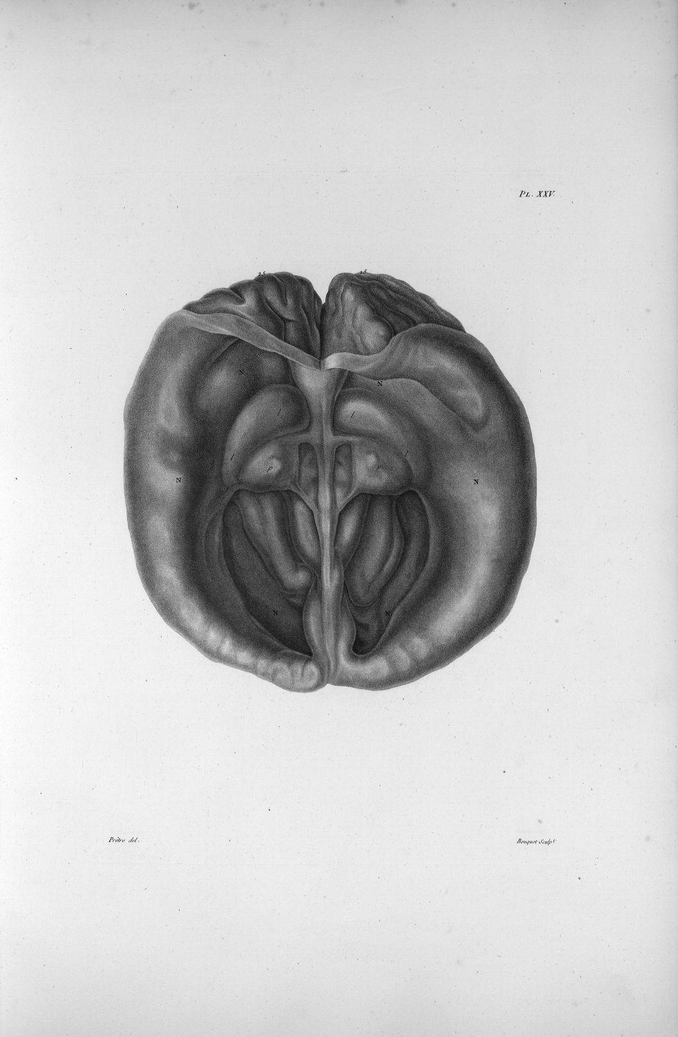 Pl. XXV. Cerveau d'une femme hydrocéphale de cinquante-cinq ans, contenant quatre litres d'eau, et j [...] - Anatomie. Neurologie. Crânes. Phrénologie. 19e siècle (France) - med00575xatlasx0035