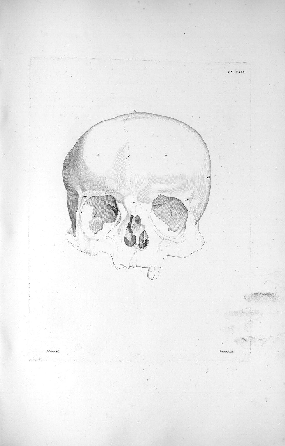 Pl. XXXI. Crâne, dont le diamètre d'un temporal à l'autre est plus considérable que du frontal à l'o [...] - Anatomie. Neurologie. Crânes. Phrénologie. 19e siècle (France) - med00575xatlasx0041