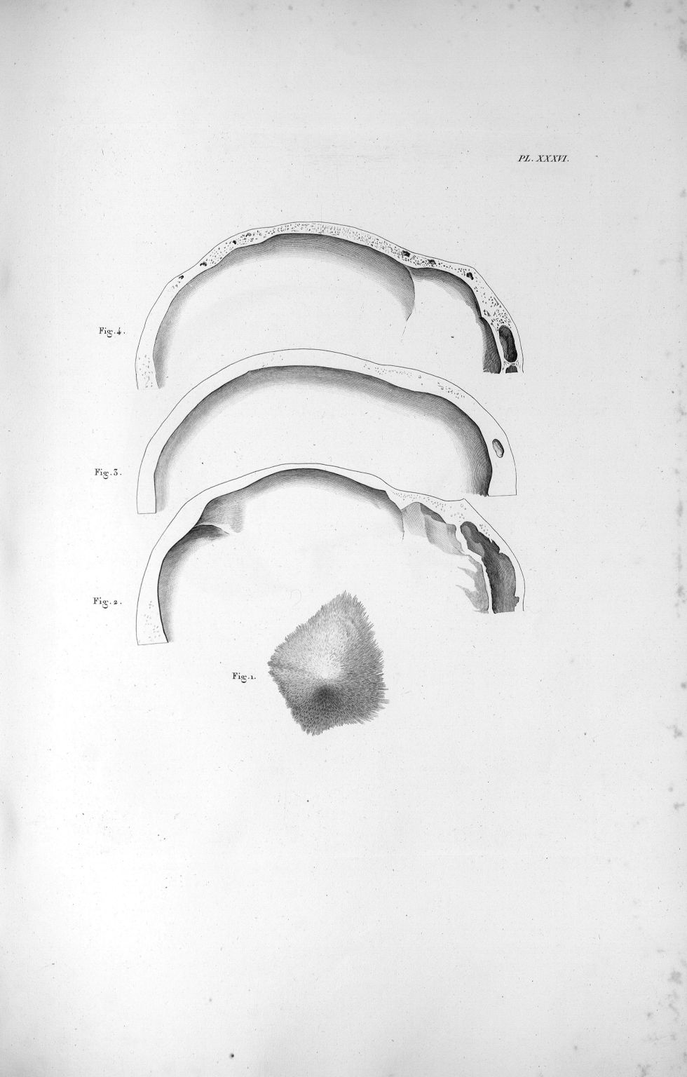 Pl. XXXVI. Osselet du crâne, pour expliquer le commencement de l'ossification - Anatomie et physiolo [...] - Anatomie. Neurologie. Crânes. 19e siècle (France) - med00575xatlasx0046