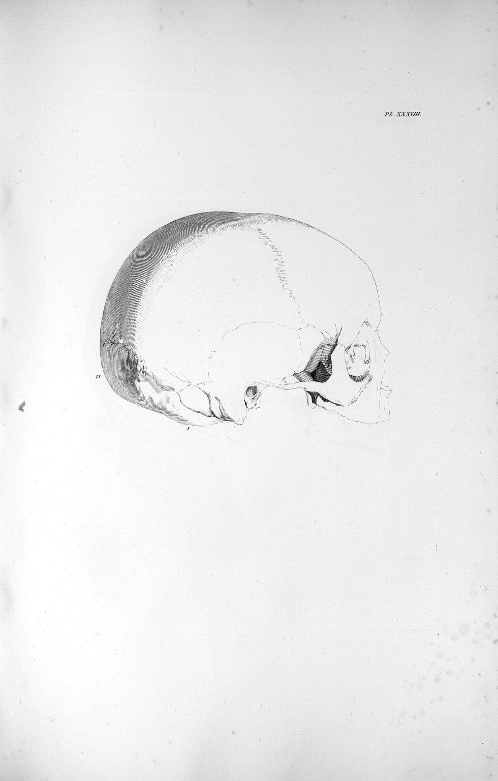 Pl. XXXVIII. Crâne d'une fillette de six ans - Anatomie et physiologie du système nerveux en général [...] - Anatomie. Neurologie. Crânes. 19e siècle (France) - med00575xatlasx0048