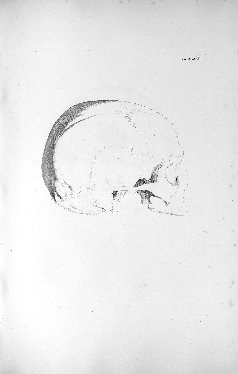 Pl. XXXIX. Crâne d'un homme adulte avec un développement extraordinaire du cervelet - Anatomie et ph [...] - Anatomie. Neurologie. Crânes. 19e siècle (France) - med00575xatlasx0049