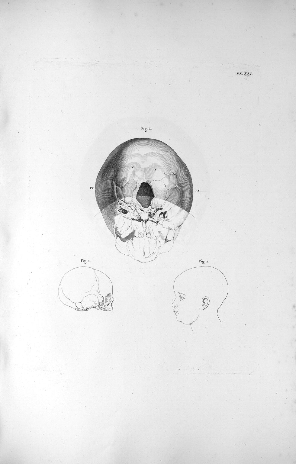Pl. XLI. Fig. 3. La base du crâne d'un enfant nouveau-né, foible développement du cervelet en compar [...] - Anatomie. Neurologie. Crânes. 19e siècle (France) - med00575xatlasx0051
