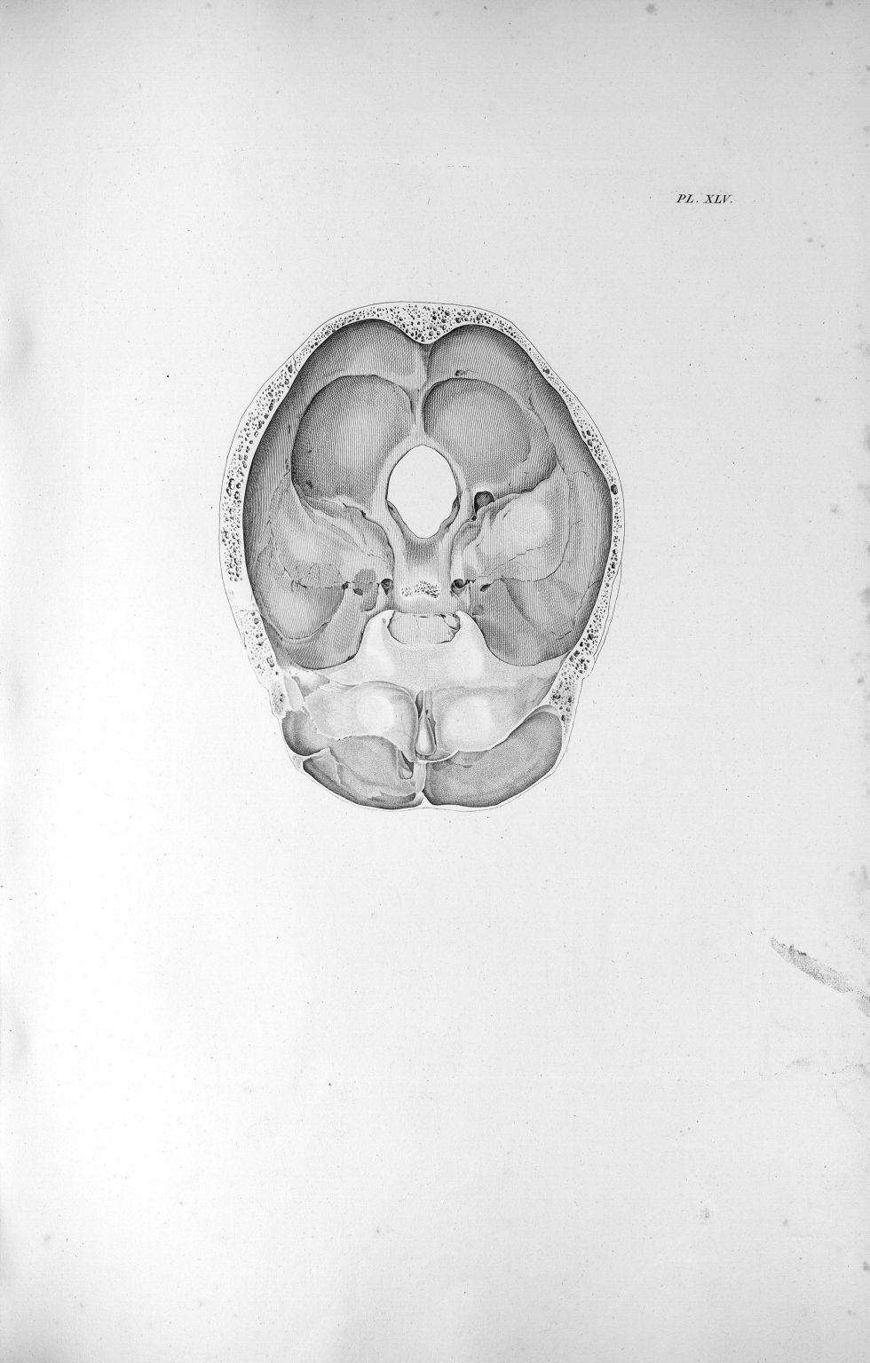 Pl. XLV. Crâne spongieux dans l'âge de la décrépitude et écartement extraordinaire de deux lames du  [...] - Anatomie. Neurologie. Crânes. 19e siècle (France) - med00575xatlasx0055