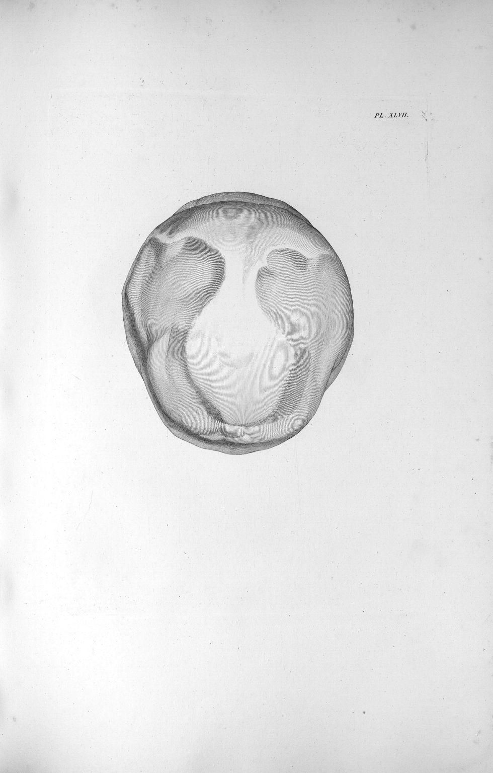 Pl. XLVII. Absorption encore plus forte [de la substance spongieuse des os pariétaux] dans un âge plus avancée - Anatomie. Neurologie. Crânes. 19e siècle (France) - med00575xatlasx0057