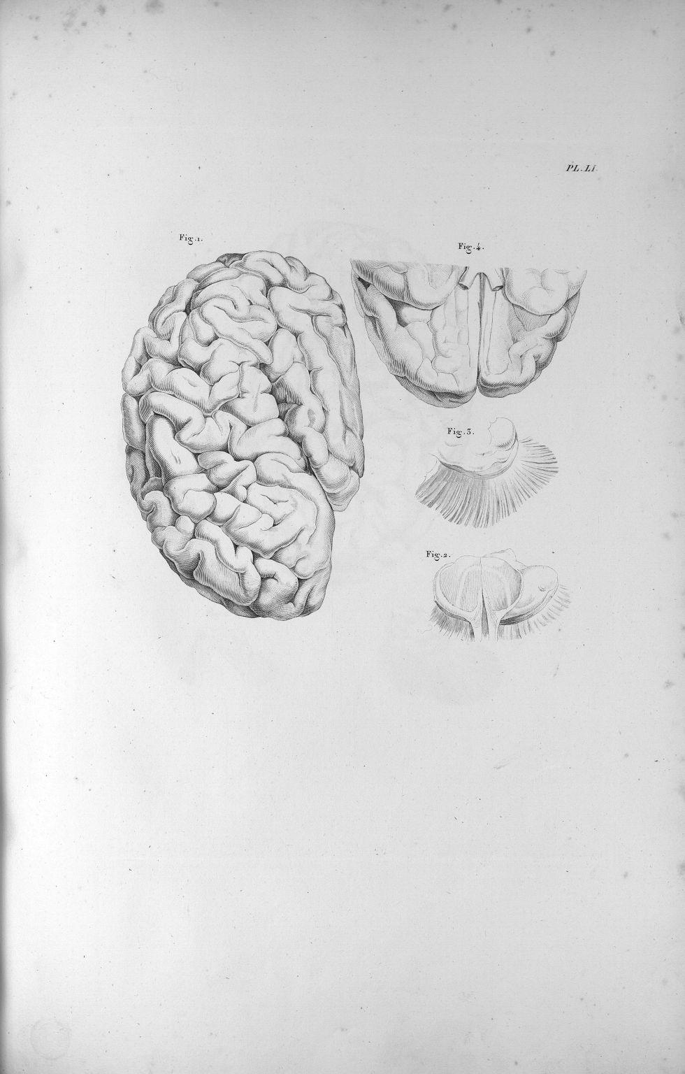 Pl. LI. Cerveau d'une jeune femme aliénée, dont la couche optique de l'hémisphère gauche a été en pa [...] - Anatomie. Neurologie. Cerveaux. Phrénologie. 19e siècle (France) - med00575xatlasx0061