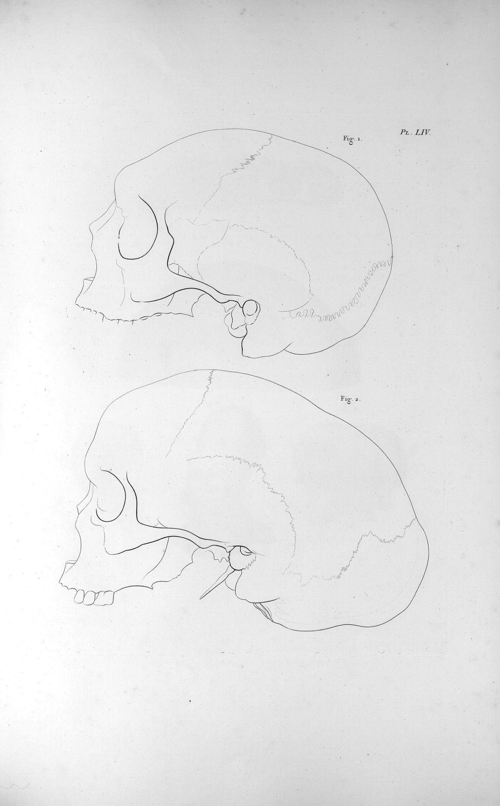 Pl. LIV. Deux crânes extraordinaires, dont fig. I est tout-à-fait déprimé dans sa partie supérieure- [...] - Anatomie. Neurologie. Crânes (malformations). Phrénologie. 19e siècle (France) - med00575xatlasx0064