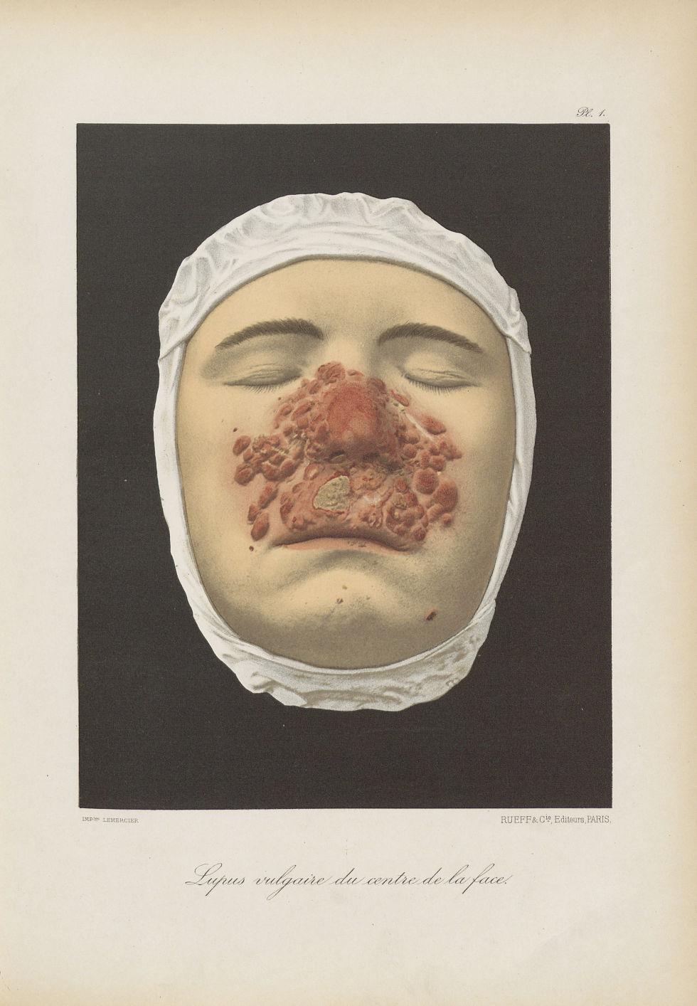 Lupus vulgaire du centre de la face - Le musée de l'hôpital Saint-Louis : iconographie des maladies  [...] - Dermatologie (peau). Visages (têtes). 19e siècle (France) - med01740x0011
