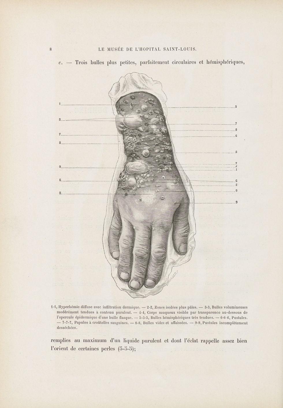 Dermatite herpétiforme - Le musée de l'hôpital Saint-Louis : iconographie des maladies cutanées et s [...] - Dermatologie (peau). Membres supérieurs. Poignets, mains. 19e siècle (France) - med01740x0017