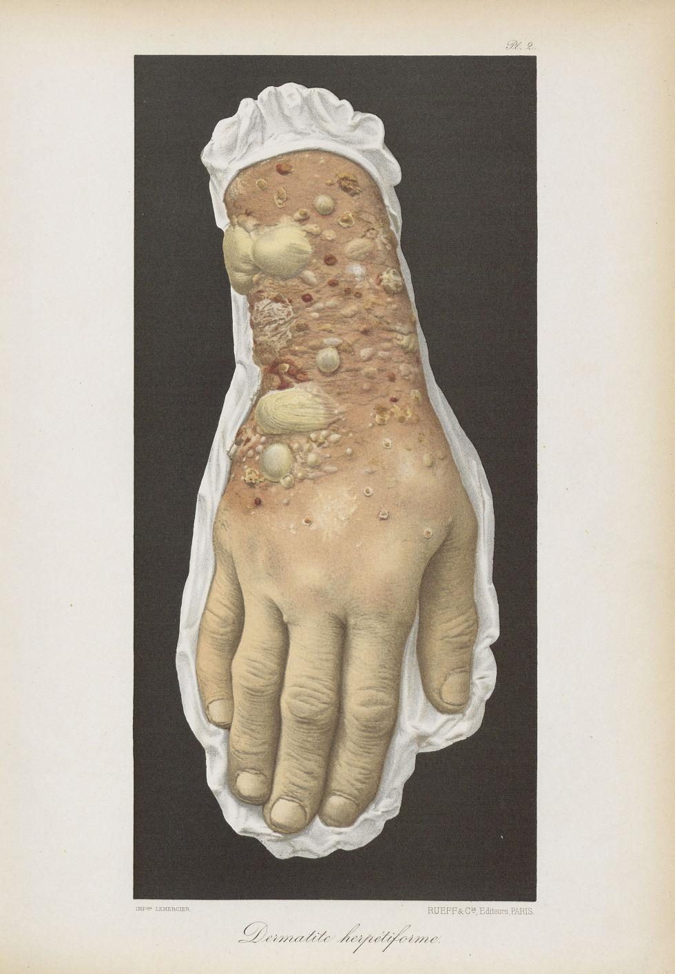 Dermatite herpétiforme - Le musée de l'hôpital Saint-Louis : iconographie des maladies cutanées et s [...] - Dermatologie (peau). Membres supérieurs. Poignets, mains. 19e siècle (France) - med01740x0018