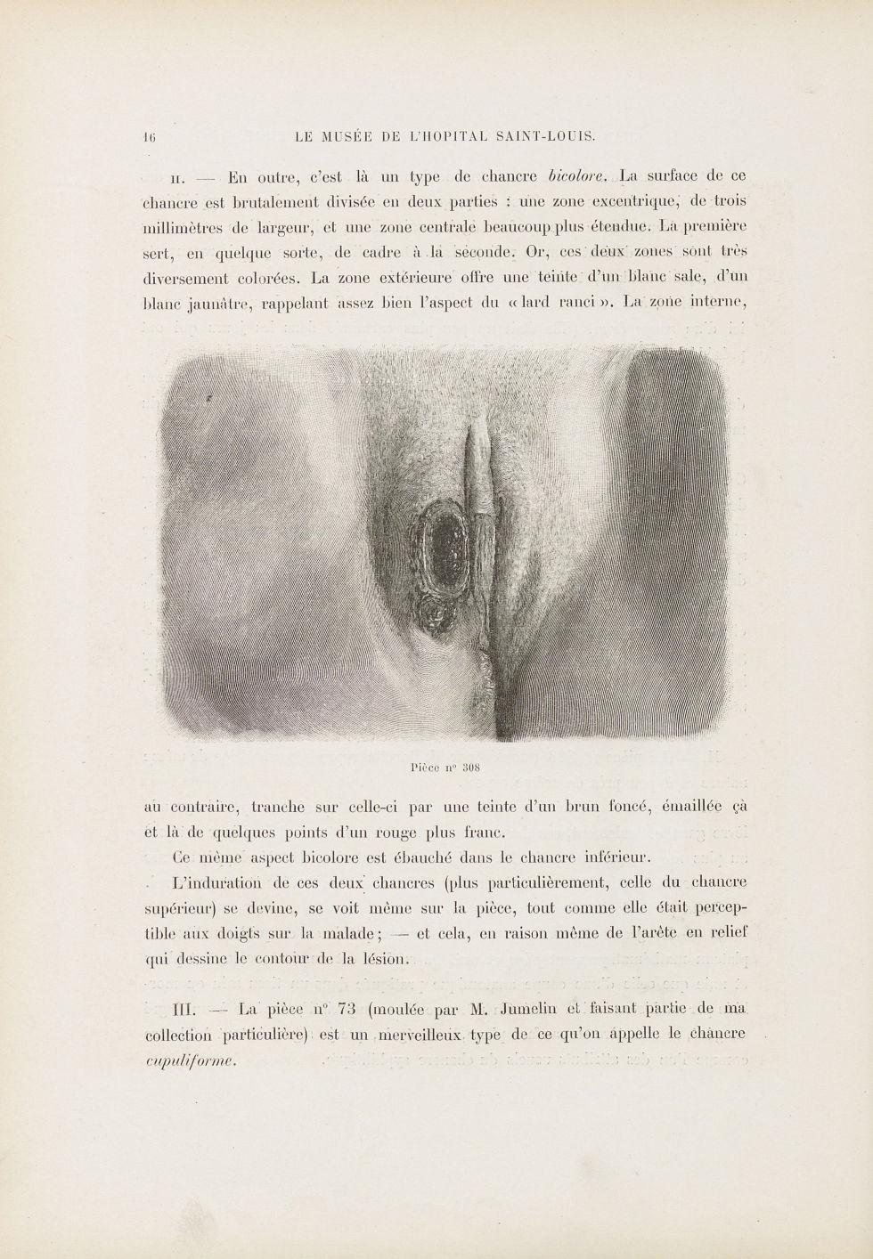 Deux chancres vulvaires juxtaposés - Le musée de l'hôpital Saint-Louis : iconographie des maladies c [...] - Dermatologie (peau). Syphilis (maladies infectieuses). Maladies sexuellement transmissibles. Organes génitaux femelles. 19e siècle (France) - med01740x0026