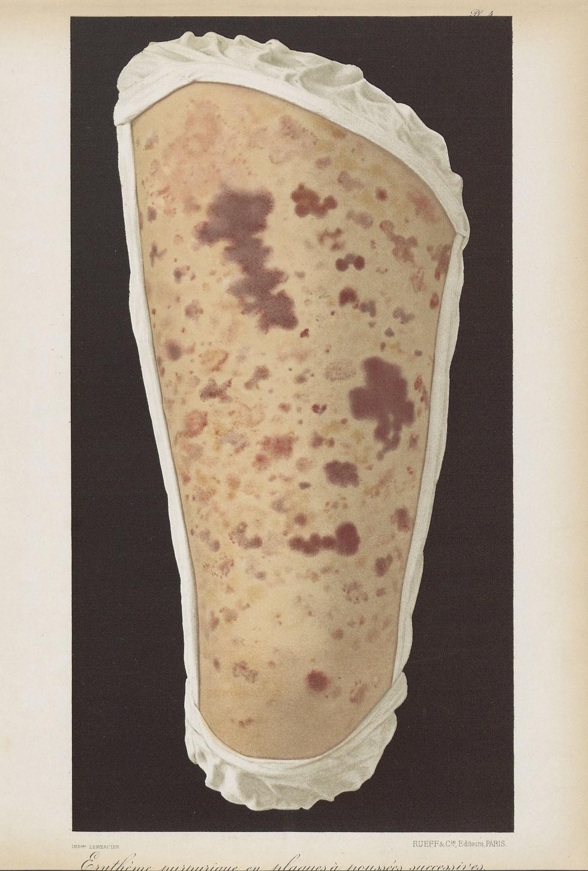 Erythème purpuriave en plaques à poussées successives - Le musée de l'hôpital Saint-Louis : iconogra [...] - Dermatologie (peau). Membres inférieurs. Cuisses. 19e siècle (France) - med01740x0040