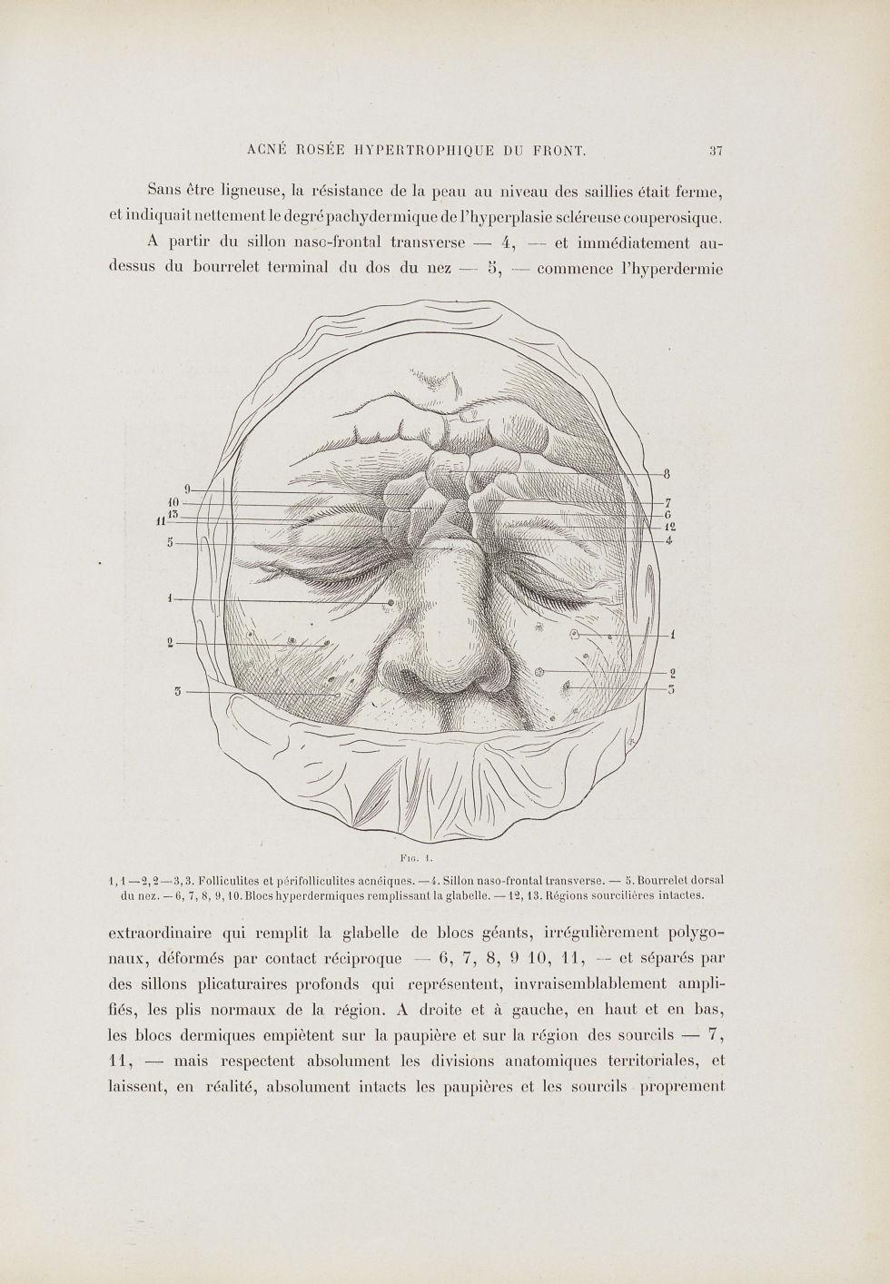 Fig. 1. Couperose hypertrophique - Dermatologie (peau). Visages (têtes). 19e siècle (France) - med01740x0051