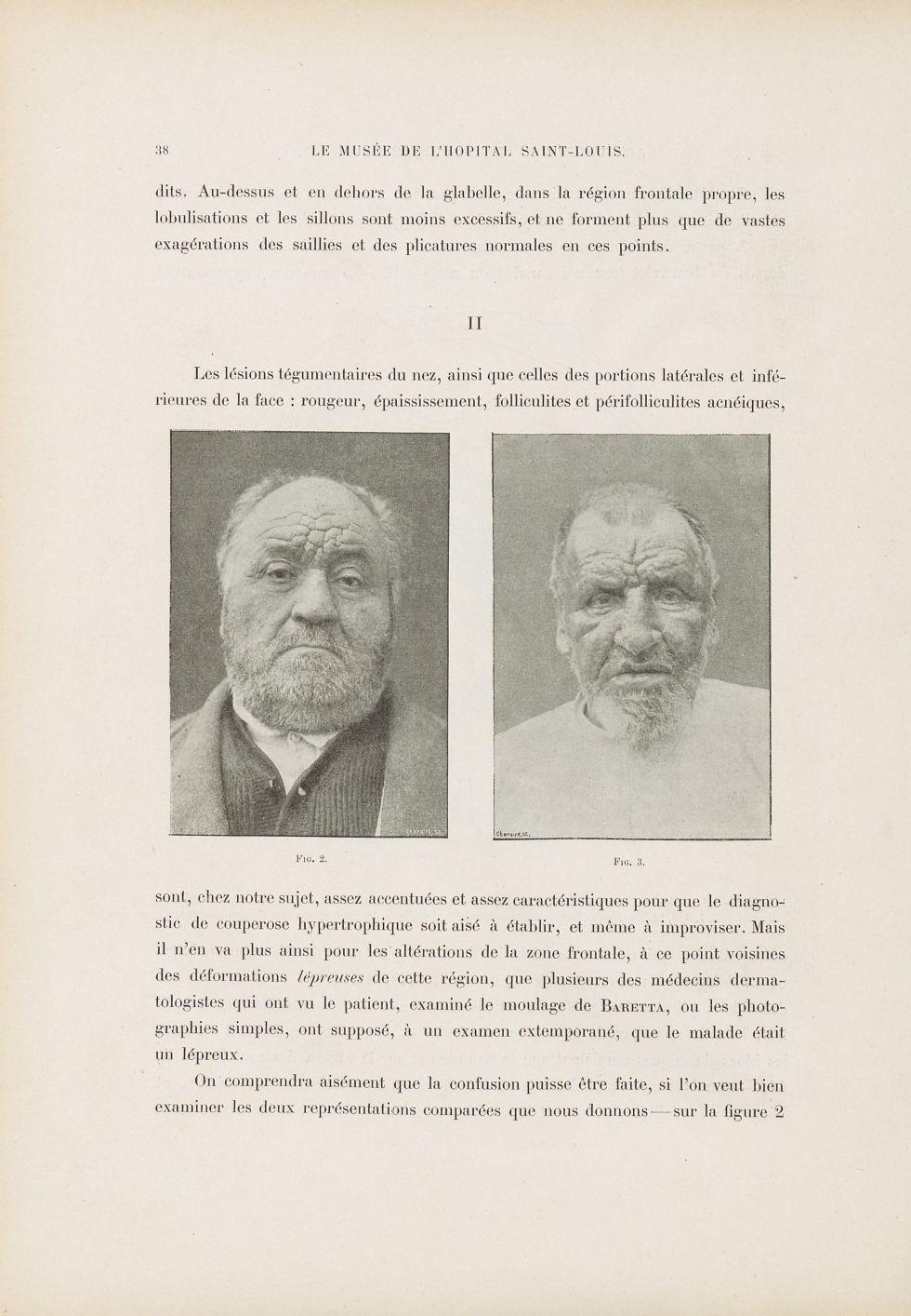 Fig. 2. [Couperose hypertrophique] / Fig. 3. Malade lépreux - Le musée de l'hôpital Saint-Louis : ic [...] - Dermatologie (peau). Lèpre. Visages (têtes). 19e siècle (France) - med01740x0052