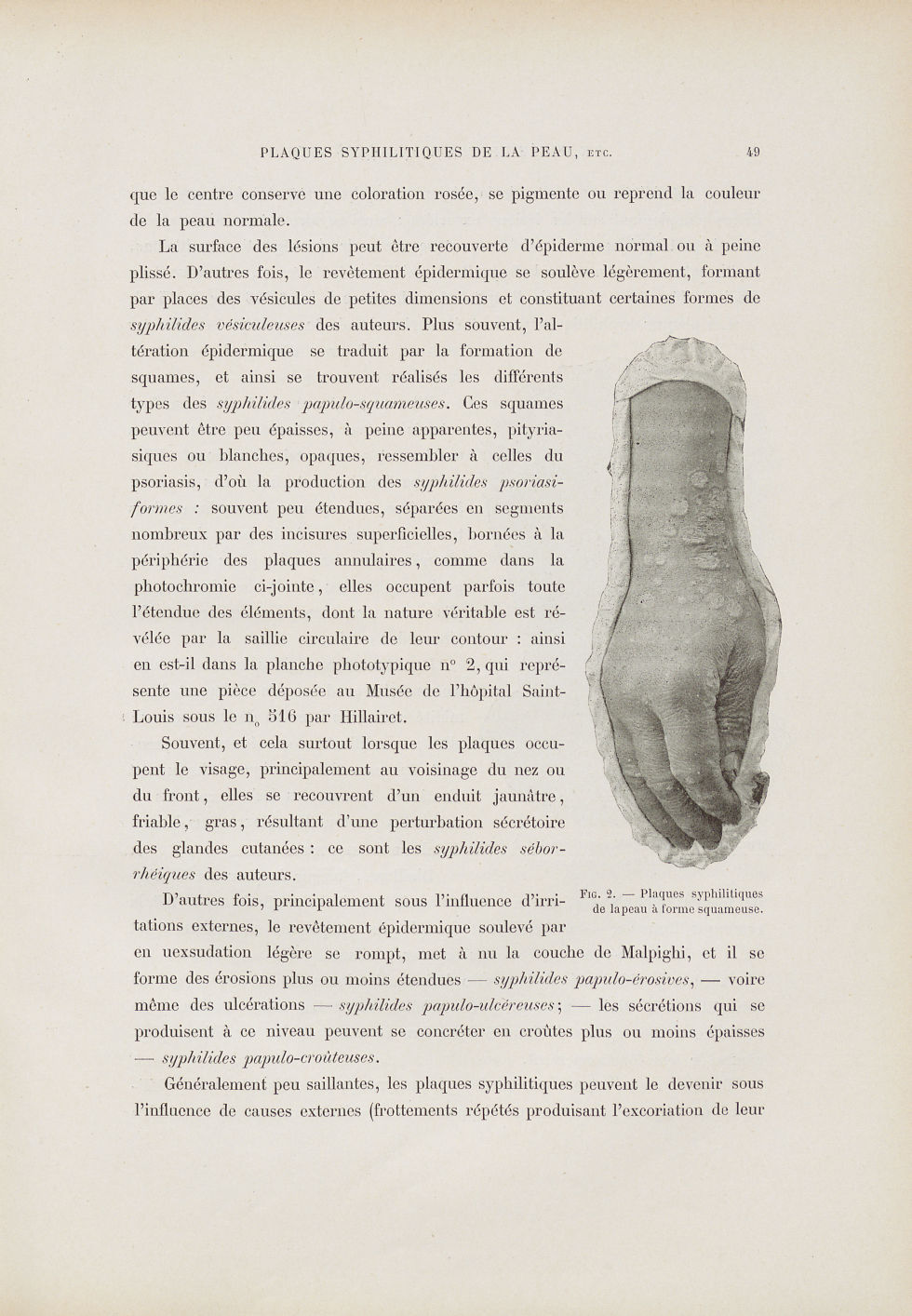 Fig. 2. Plaques syphilitiques de la peau à forme squameuse - Le musée de l'hôpital Saint-Louis : ico [...] - Dermatologie (peau). Syphilis (maladies infectieuses). Maladies sexuellement transmissibles. Membres supérieurs. Poignets, mains. 19e siècle (France) - med01740x0064