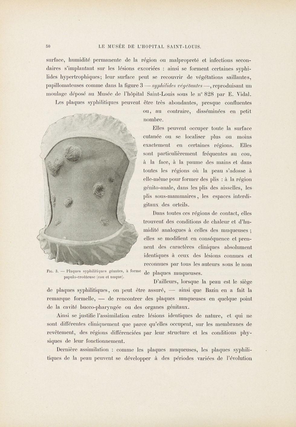 Fig. 3. Plaques syphilitiques géantes, à forme papulo-crouteuse - Le musée de l'hôpital Saint-Louis  [...] - Dermatologie (peau). Syphilis (maladies infectieuses). Maladies sexuellement transmissibles. 19e siècle (France) - med01740x0065